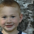 Lombard preschooler's risky surgery a success