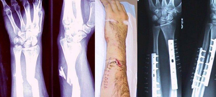 The Body Responds Quickly To Heal Broken Bones
