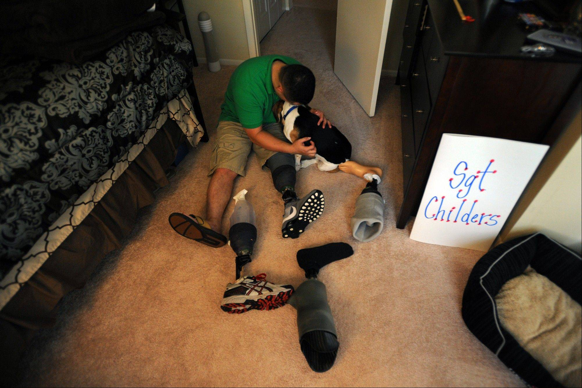 Jimmy Childers, a Marine sergeant and amputee, hugs his beagle, Tidus, amid his prosthetic legs at home in Gaithersburg, Md.