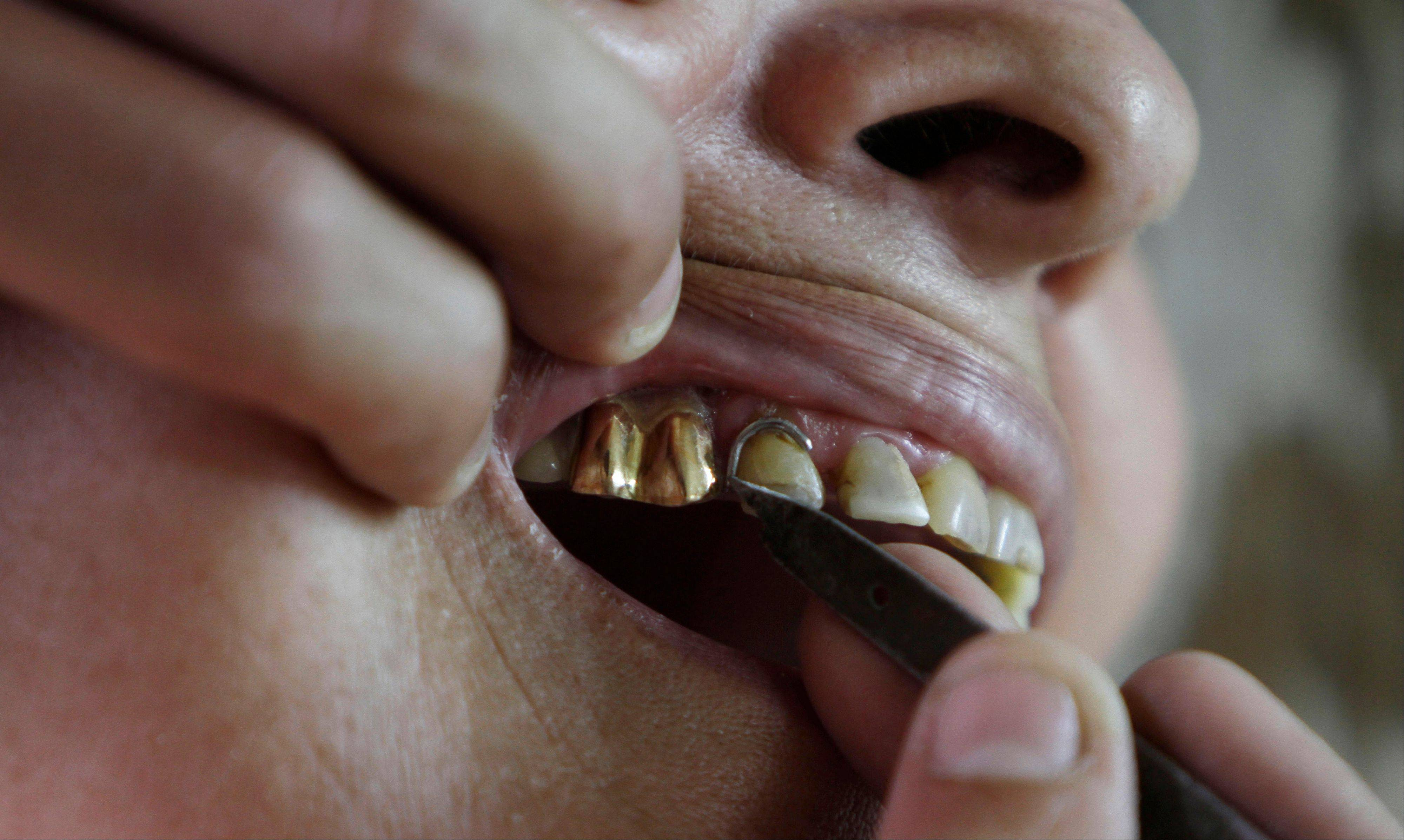 A woman has golden teeth put in her mouth at the workshop of a false tooth maker in Havana. The tooth maker charges up to $40 per tooth, including installation, using gold melted down from jewelry and trinkets he buys from secret suppliers.