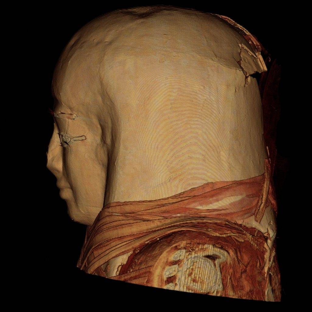 Huntley-based Genesis Medical Imaging, Inc., helped Field Museum researchers peer inside mummies.