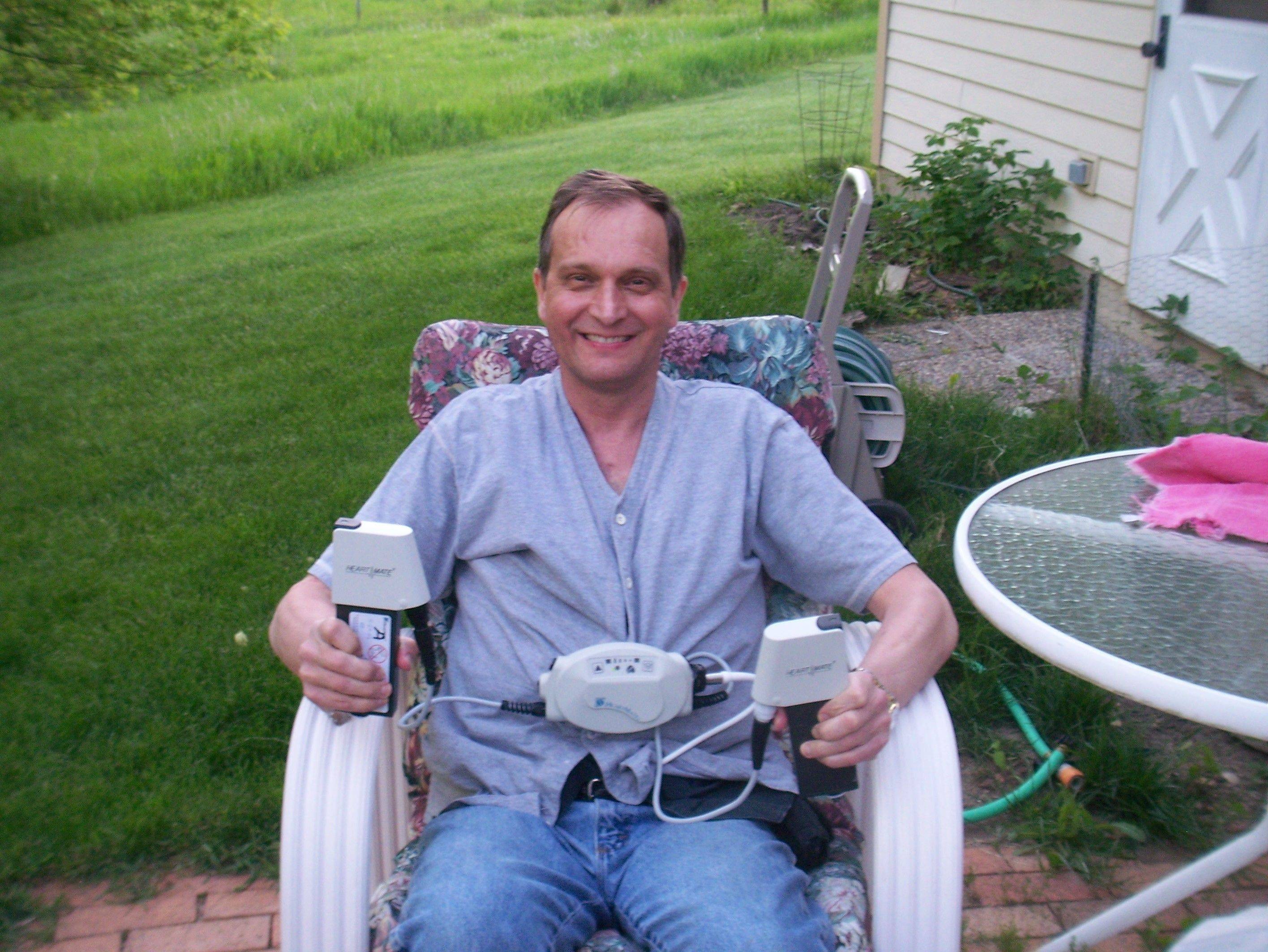 Kevin Lue, of Bartlett, sits with his VAD, a ventricular assist device, which pumped his ailing heart.
