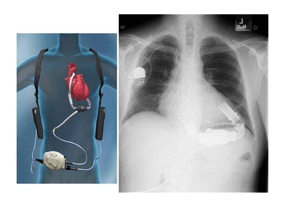 Mayo Clinic doctors in Minnesota took this x-ray of Kevin Lue after the Bartlett man collaposed while running. The image on the right shows Lue's ventricular assist device.