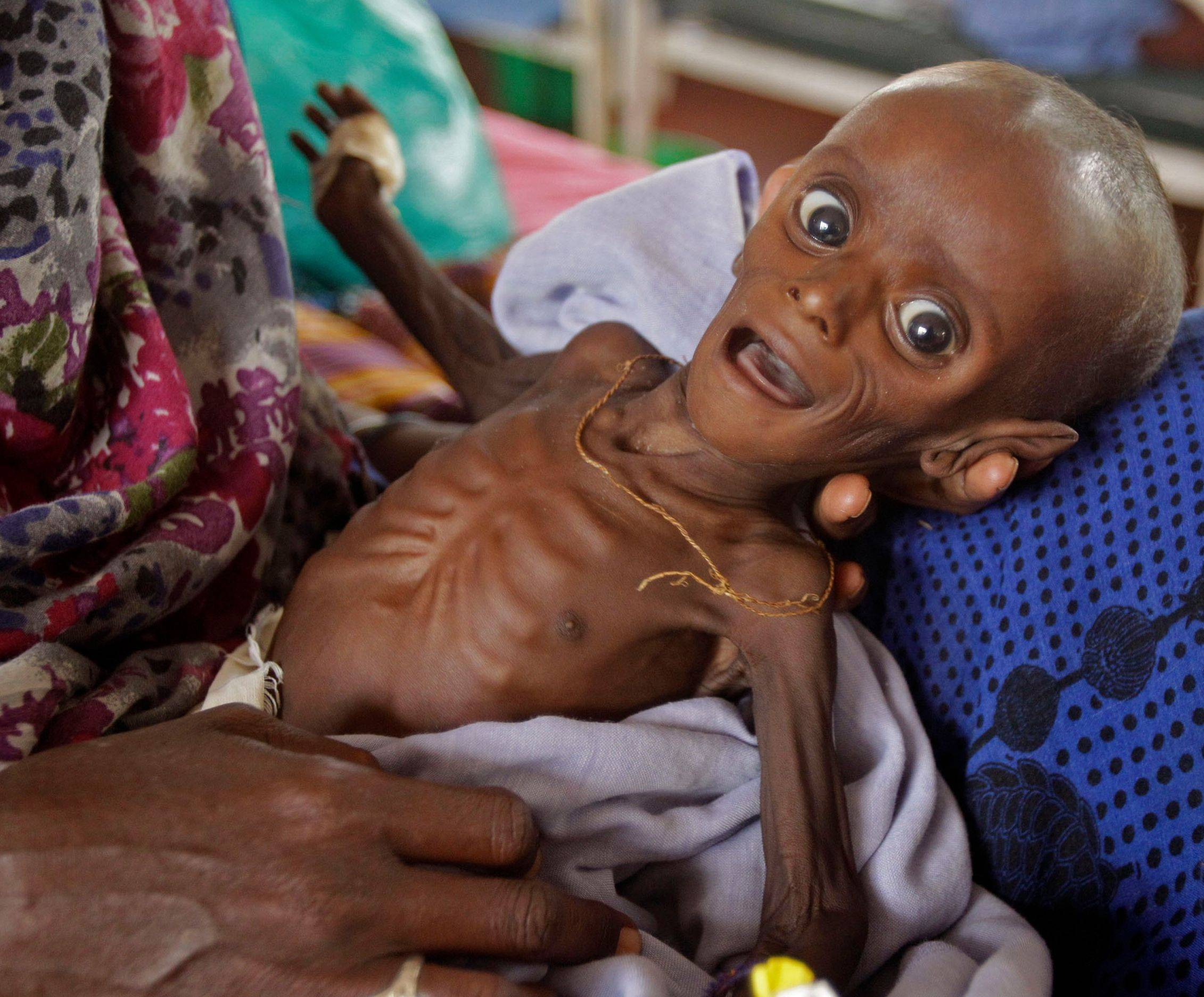 Mihag Gedi Farah, who at a 7 months old weighs just 7 pounds, is held by his mother in a field hospital of the International Rescue Committee in Dadaab, Kenya, on Tuesday.