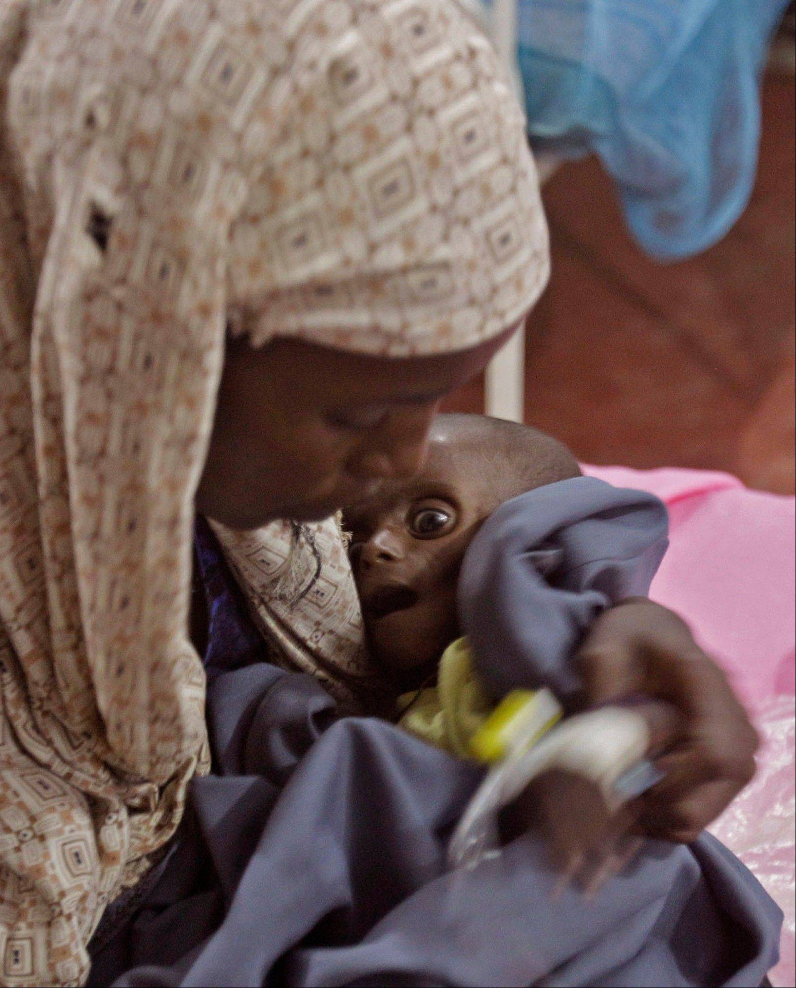 Asiah Dagane holds Mihag Gedi Farah, her 7-month-old child with a weight of 7 pounds, 8 ounces, at a field hospital of the International Rescue Committee in Dadaab, Kenya.