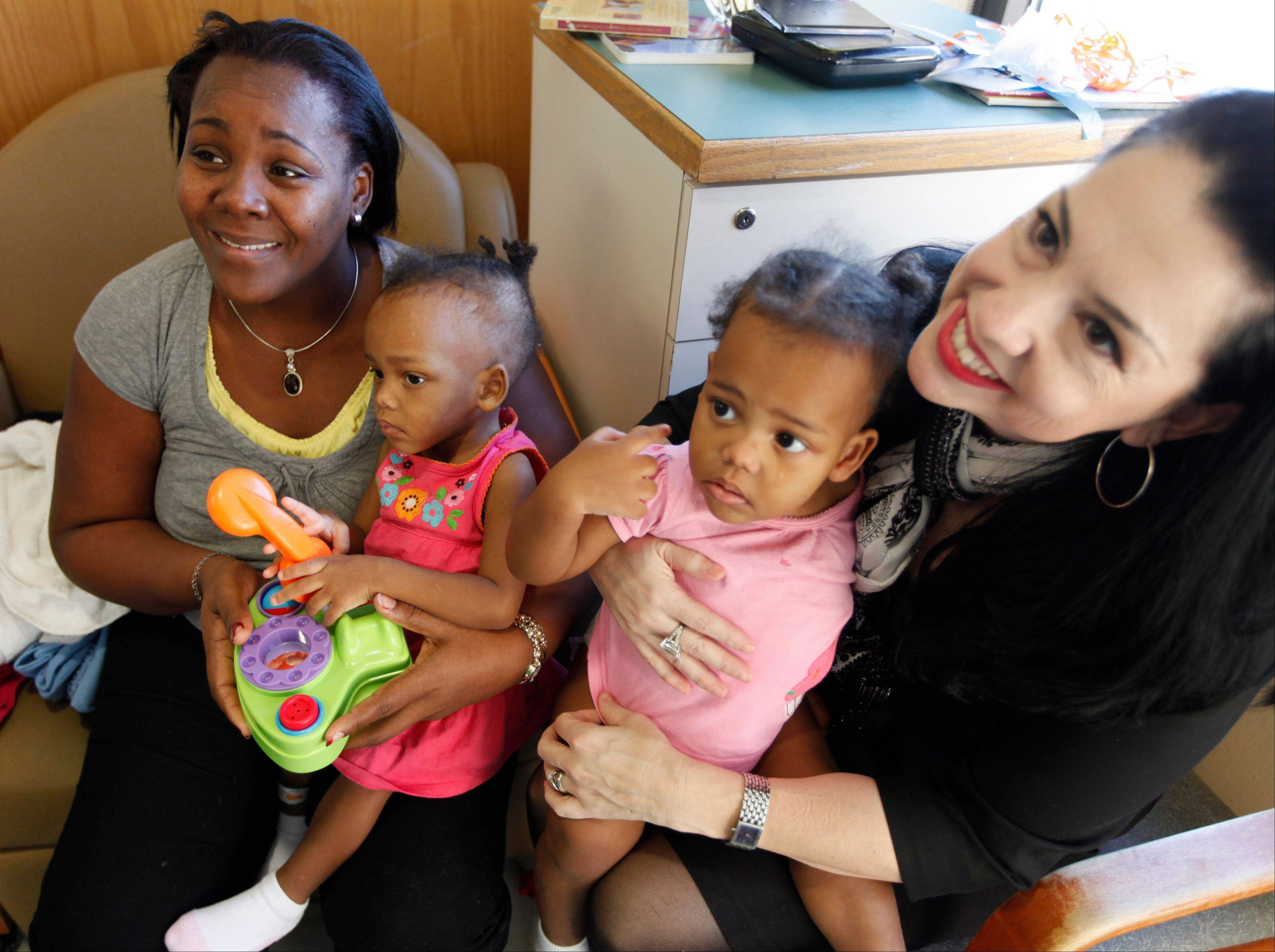 Former conjoined toddlers continue recovery in Va.
