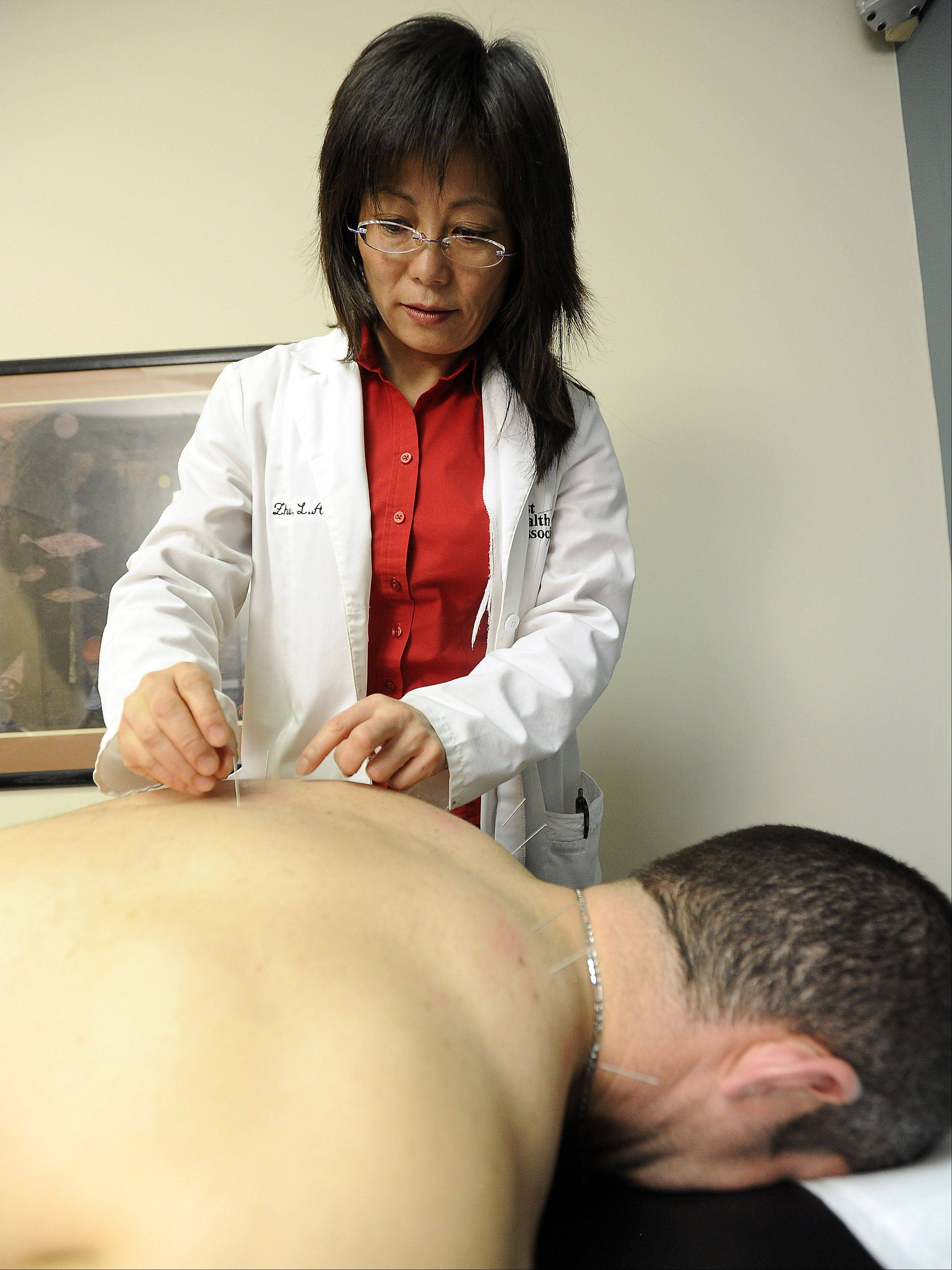 Acupuncture seeks to stimulate healing within body