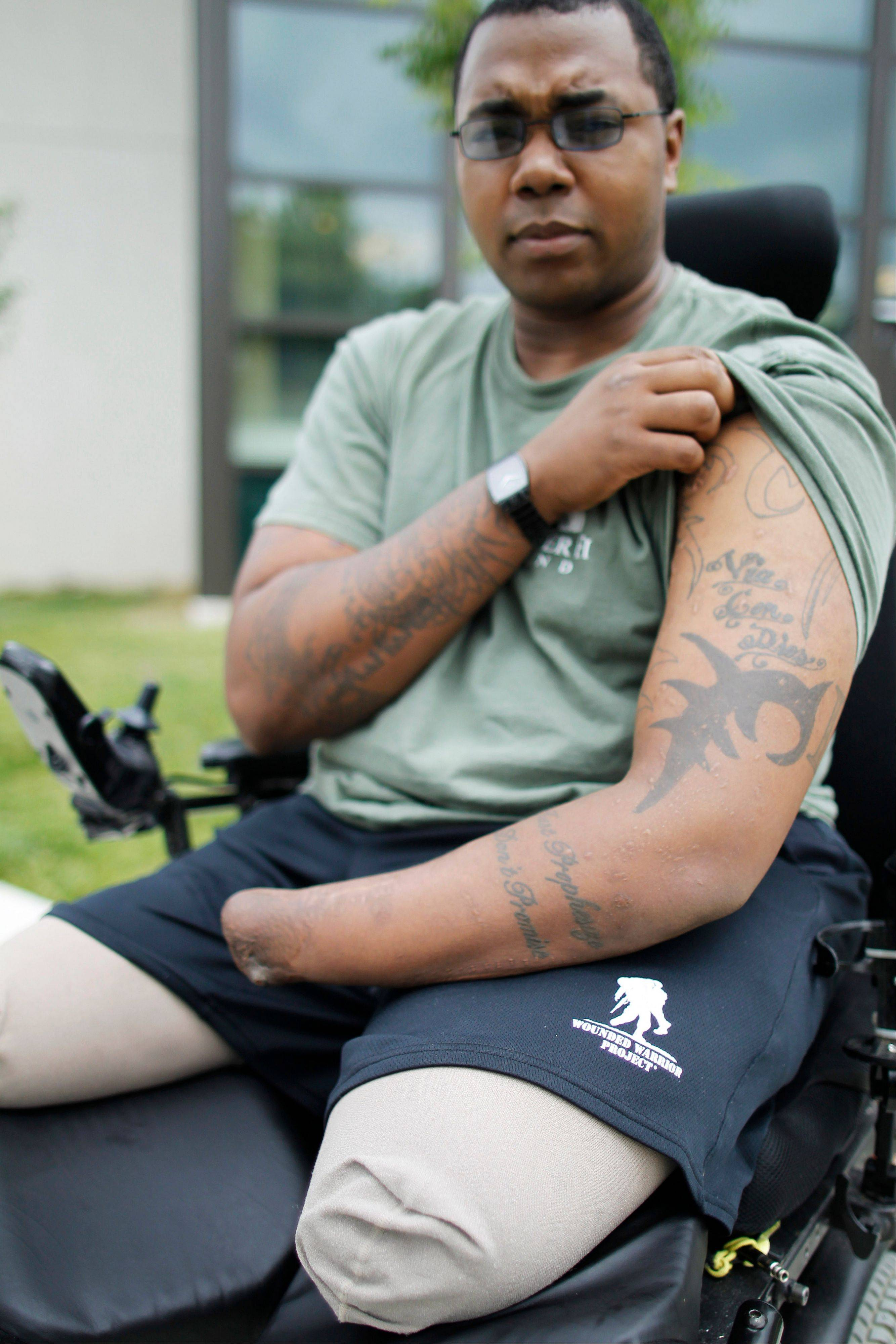 Marine Cpl. Larry Bailey II of Zion shows the tattoos on his arm at Walter Reed National Military Medical Center in Bethesda, Md., on Tuesday. After tripping a rooftop bomb in Afghanistan in June 2011, the 26-year-old Marine remembers flying into the air, then fellow troops attending to him. Bailey, who ended up a triple amputee, expects to get a hand transplant this summer.