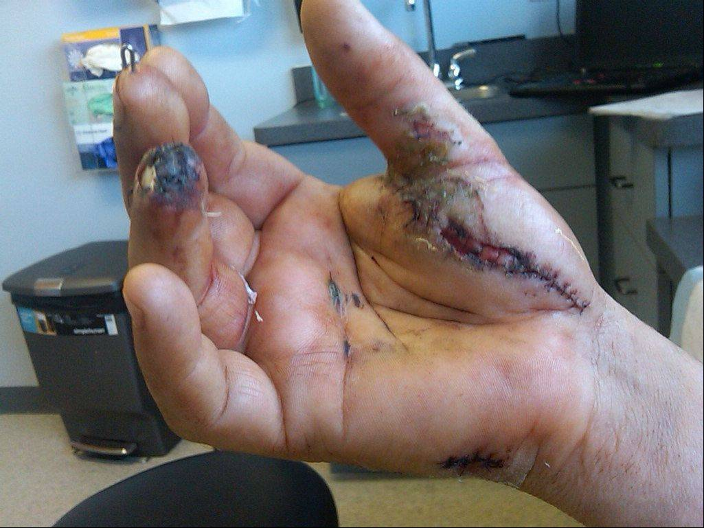 Frank Hayes' hand after his fireworks accident last year.