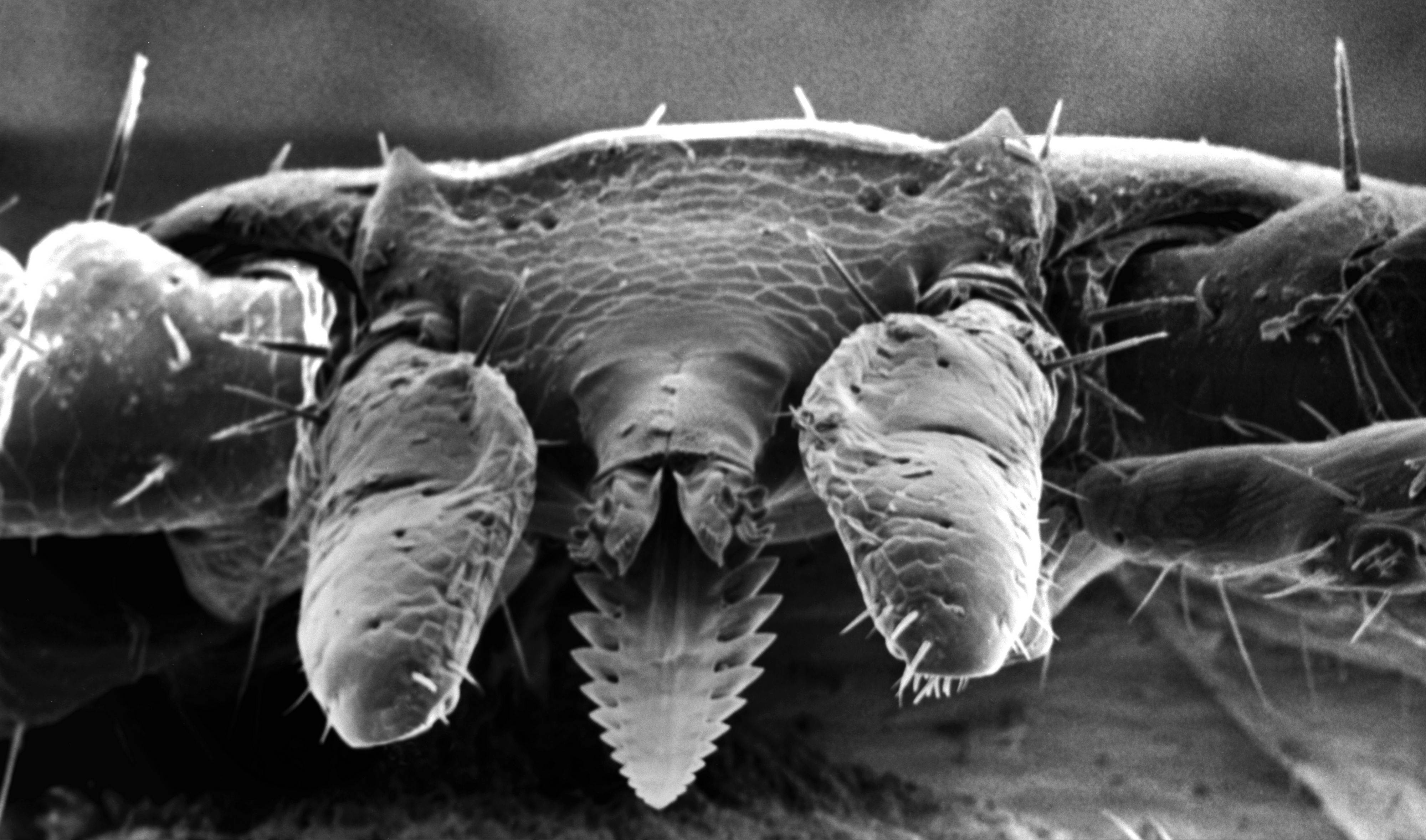 A deer tick magnified under an electron microscope. The ticks carry the bacteria for Lyme disease, and can transmit it to dogs (and humans).