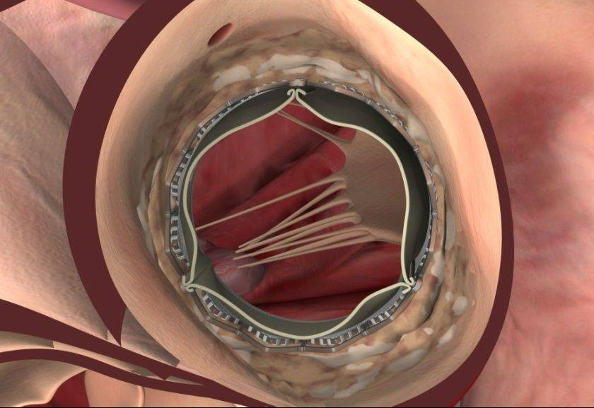 This computer-generated image simulates Hufnagel's new, fully expanded aortic valve.