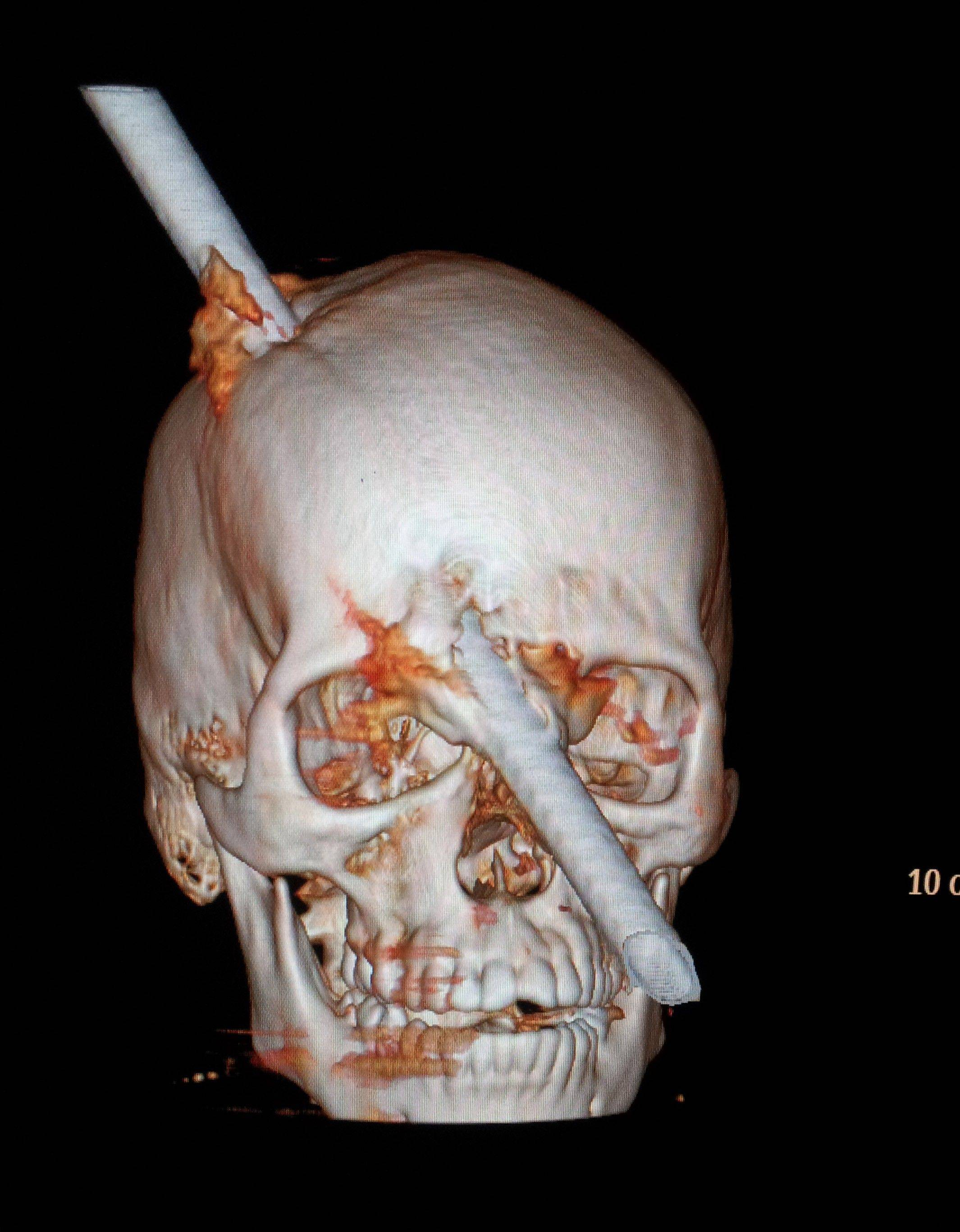 This tomography scan shows the skull of 24-year-old construction worker Eduardo Leite pierced by a metal bar. Associated Press