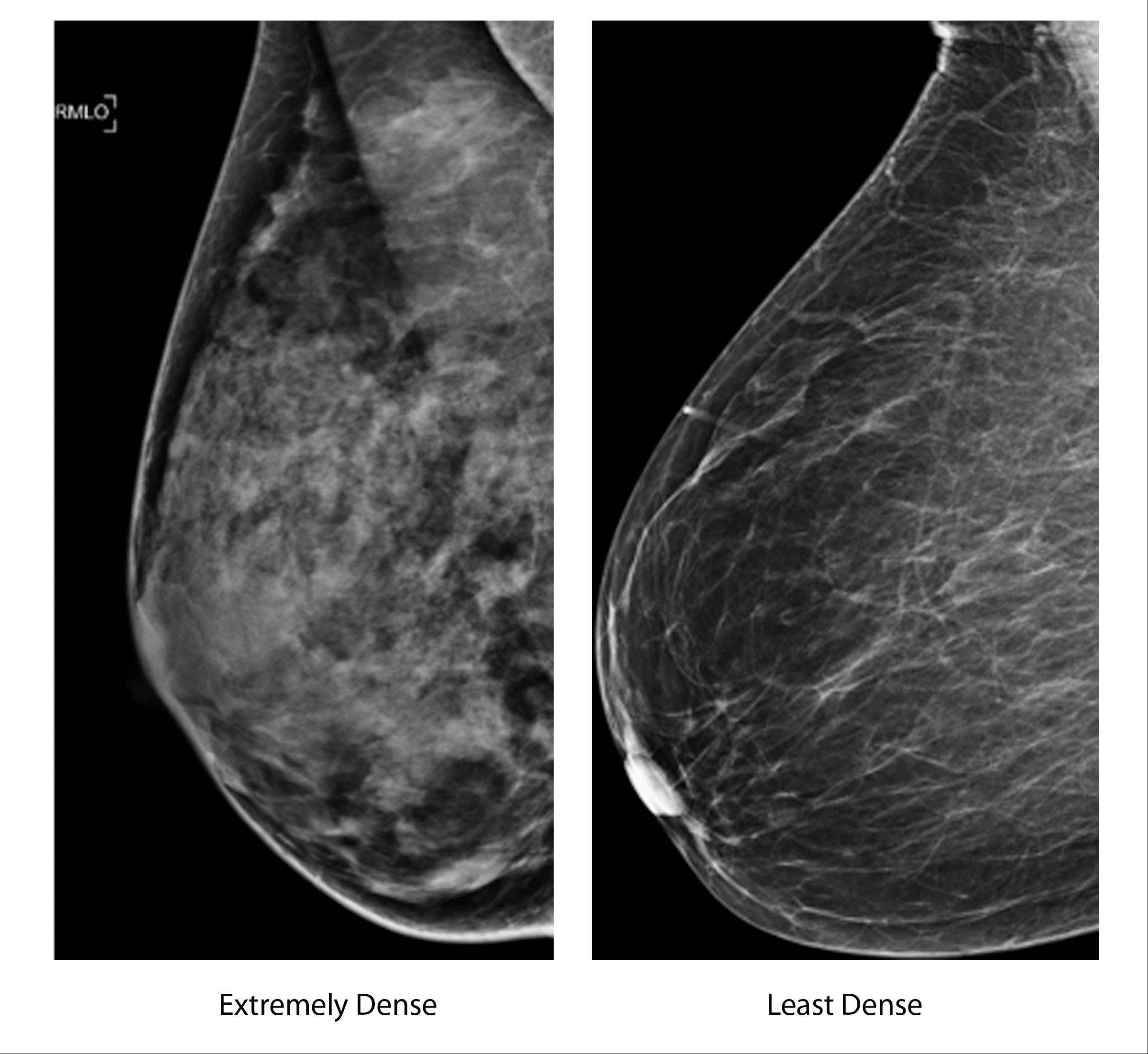 This X-ray image compares mammograms of an extremely dense breast, left, and an extremely fatty breast. According to the American College of Radiology, most women fall somewhere in between.