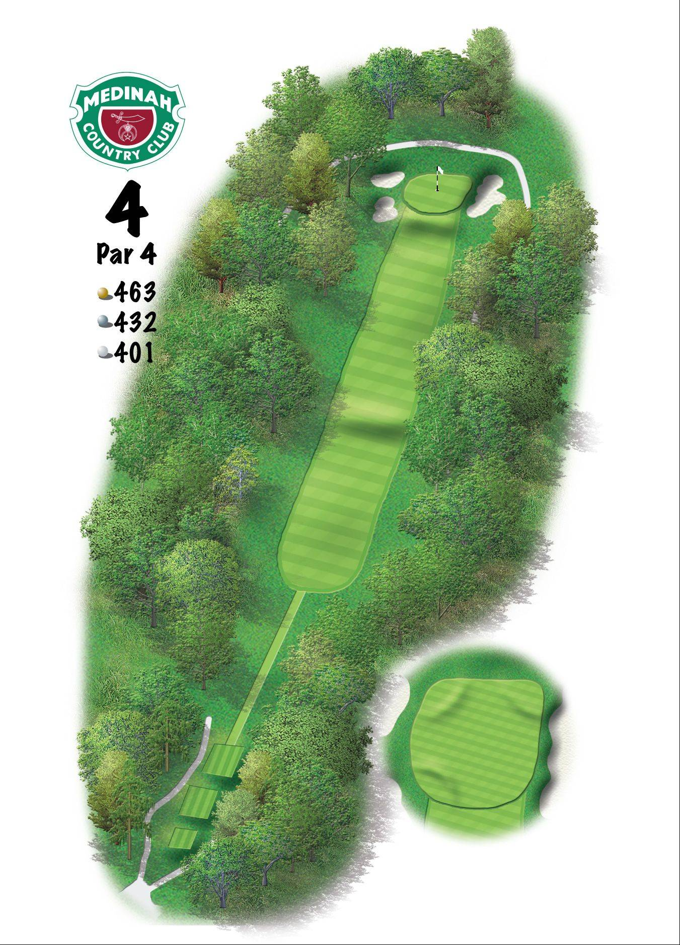 Hole 4 of the Ryder Cup course at Medinah. 463 yards/423 meters, Par-4, Favor the right side of this pitched fairway, as any balls hit down the left side will likely find the rough. Approach shots to the green always play a club longer because of the severe elevation change from fairway-to-green.