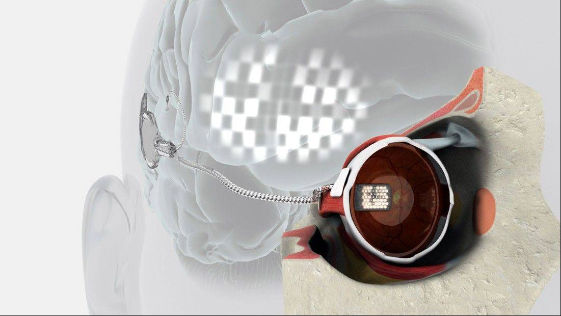 "The ""pre-bionic eye"" is a retinal implant with 24 electrodes. A small lead wire extends from the back of the eye to a connector behind the ear. Using an external system in the lab, the researchers can stimulate the implant in order to study the flashes of light."