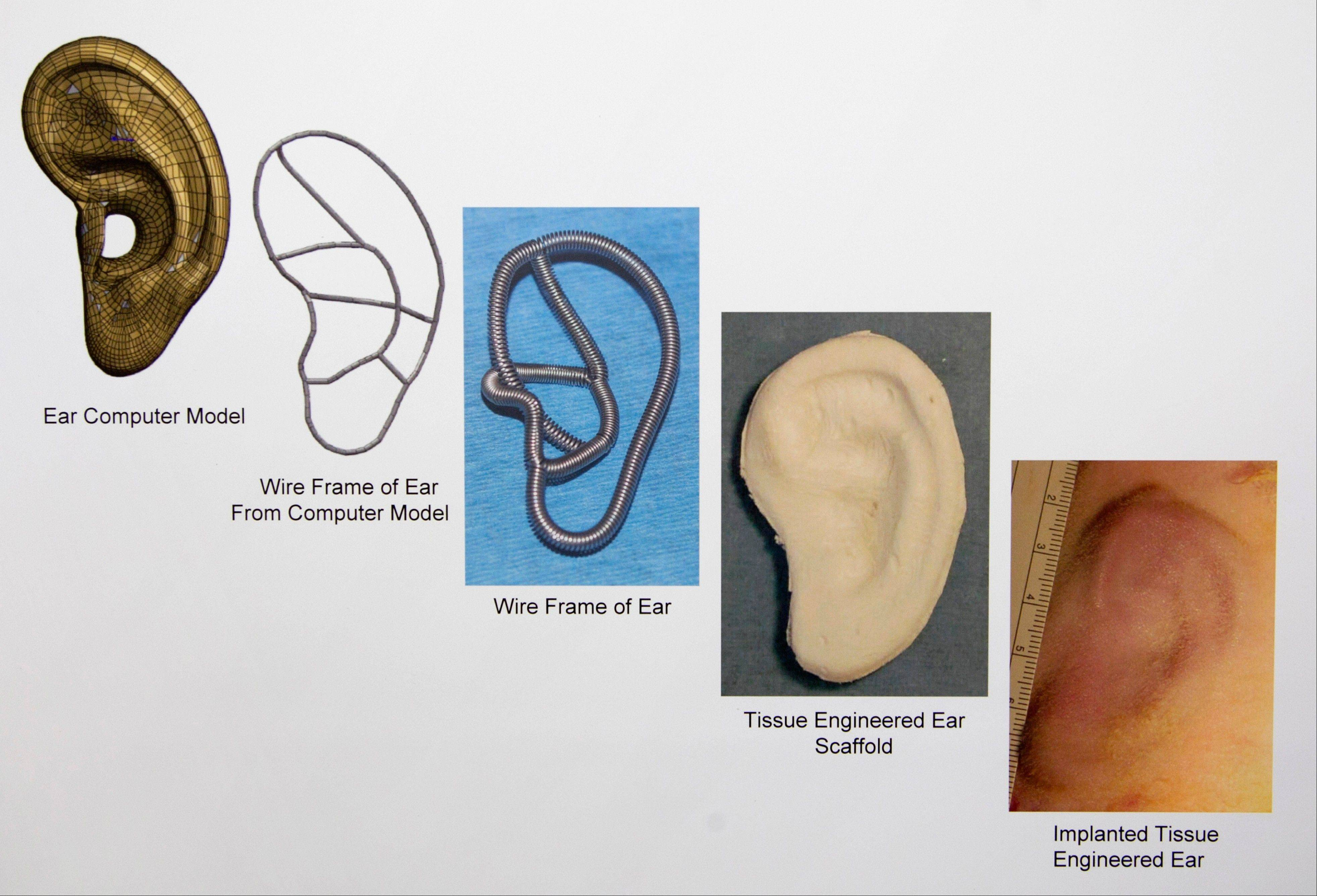 Courtesy of the Laboratory for Tissue Engineering and Organ Fabrication at Massachusetts General HospitalChart depicts the progression, from left, of implanted tissue engineered for ear development and construction, at the lab in Boston. Scientists are growing ears, bone and skin in the lab, and doctors are planning more face transplants and other extreme plastic surgeries.