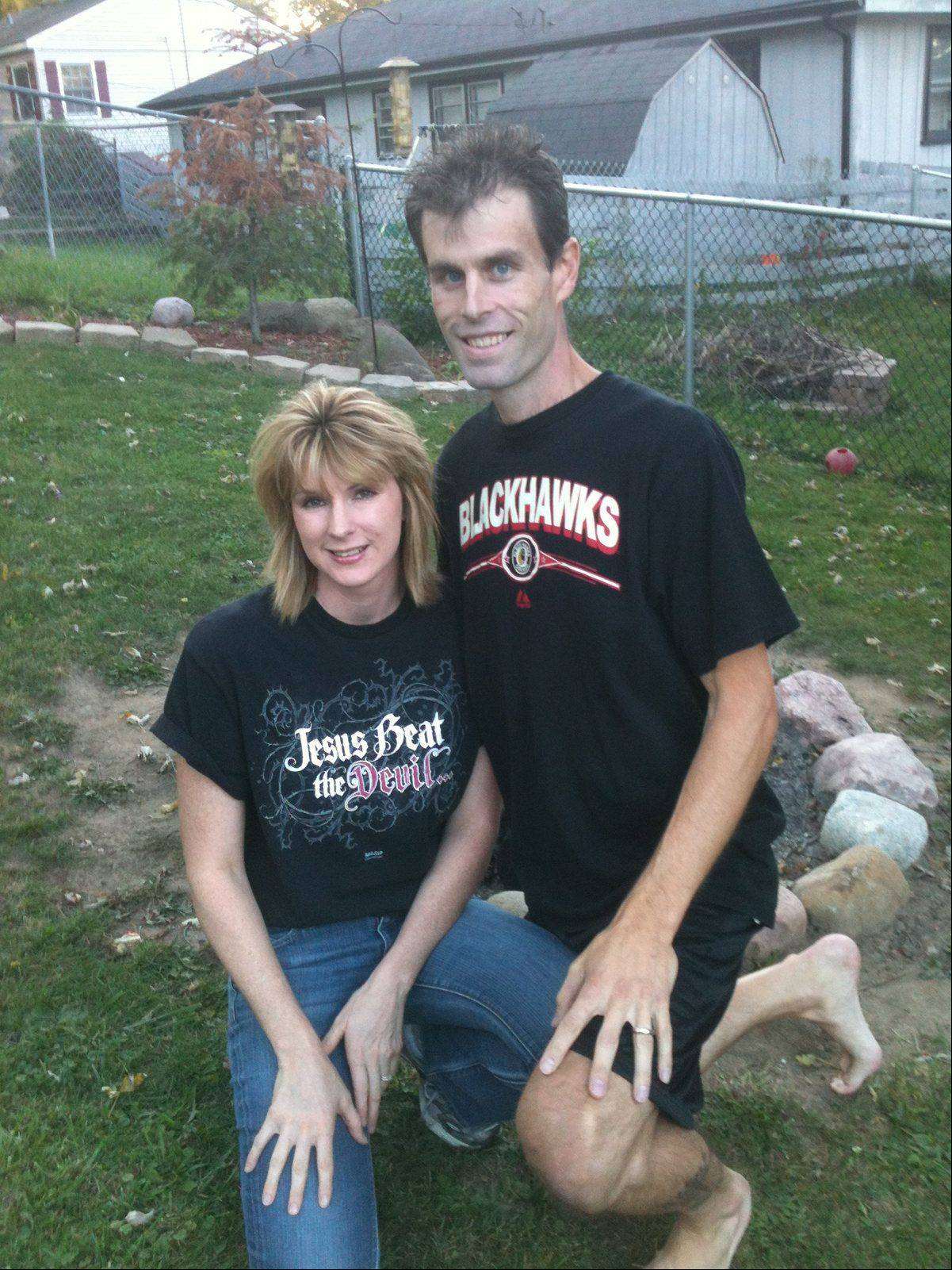 Renee Smith and her husband, Tony, a few days after a piece of shrapnel landed in her cheek. A backyard fire ignited two bullets Sunday night at their home near Johnsburg.