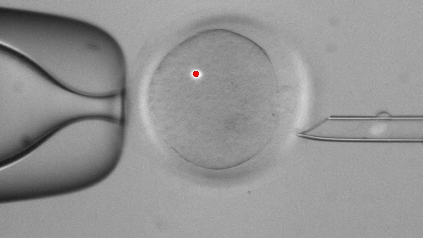 In this image made available by the Oregon Health & Science University, a faint white blotch in the tube at right is DNA that has been removed from a human egg, center. The red dot is from a laser used in the procedure. Scientists have successfully transplanted DNA between human eggs and grown them into early embryos