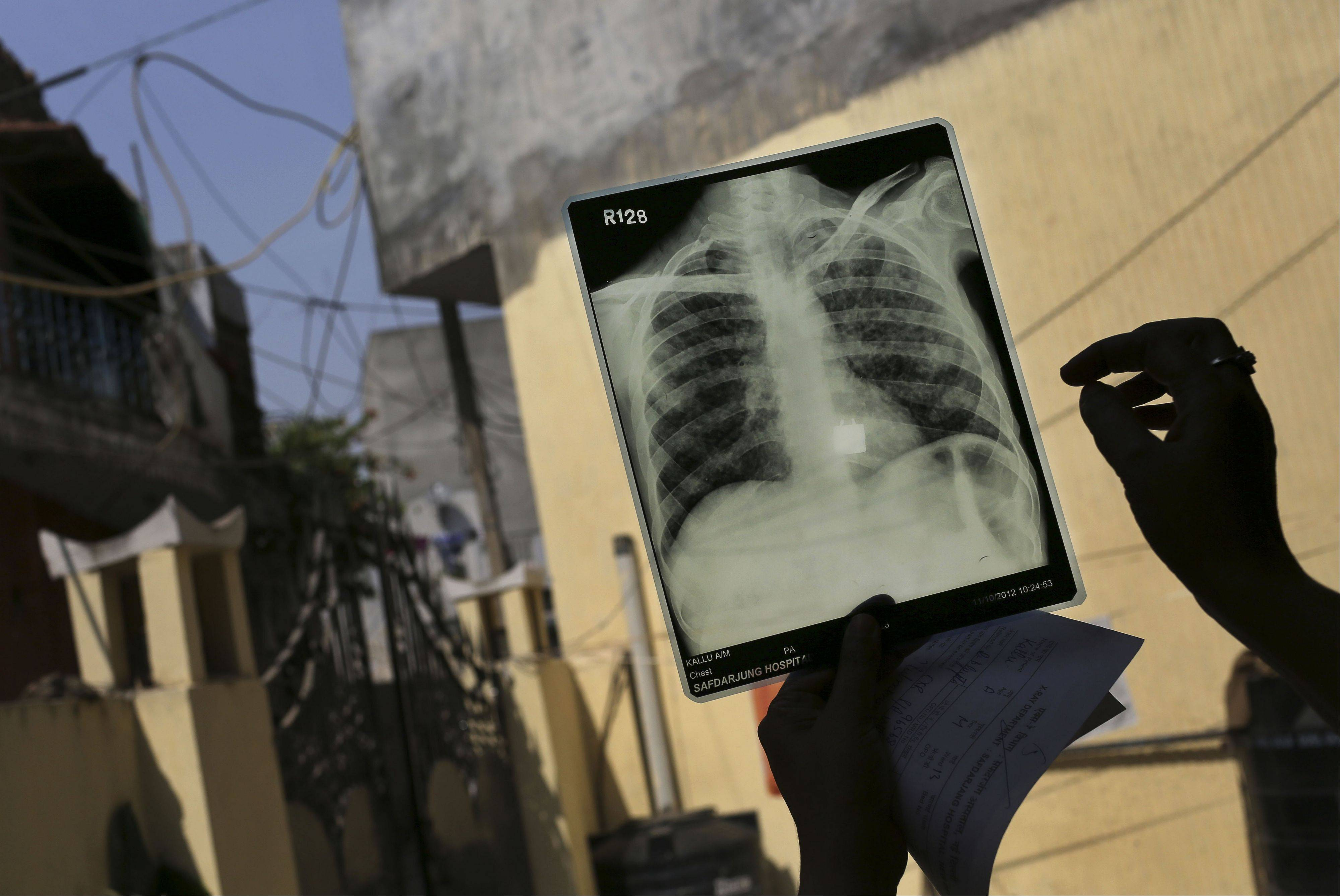 Associated Press/Oct. 17, 2012A counselor looks at the X-ray of a patient suffering from both tuberculosis and HIV at an Operation ASHA program center in New Delhi.