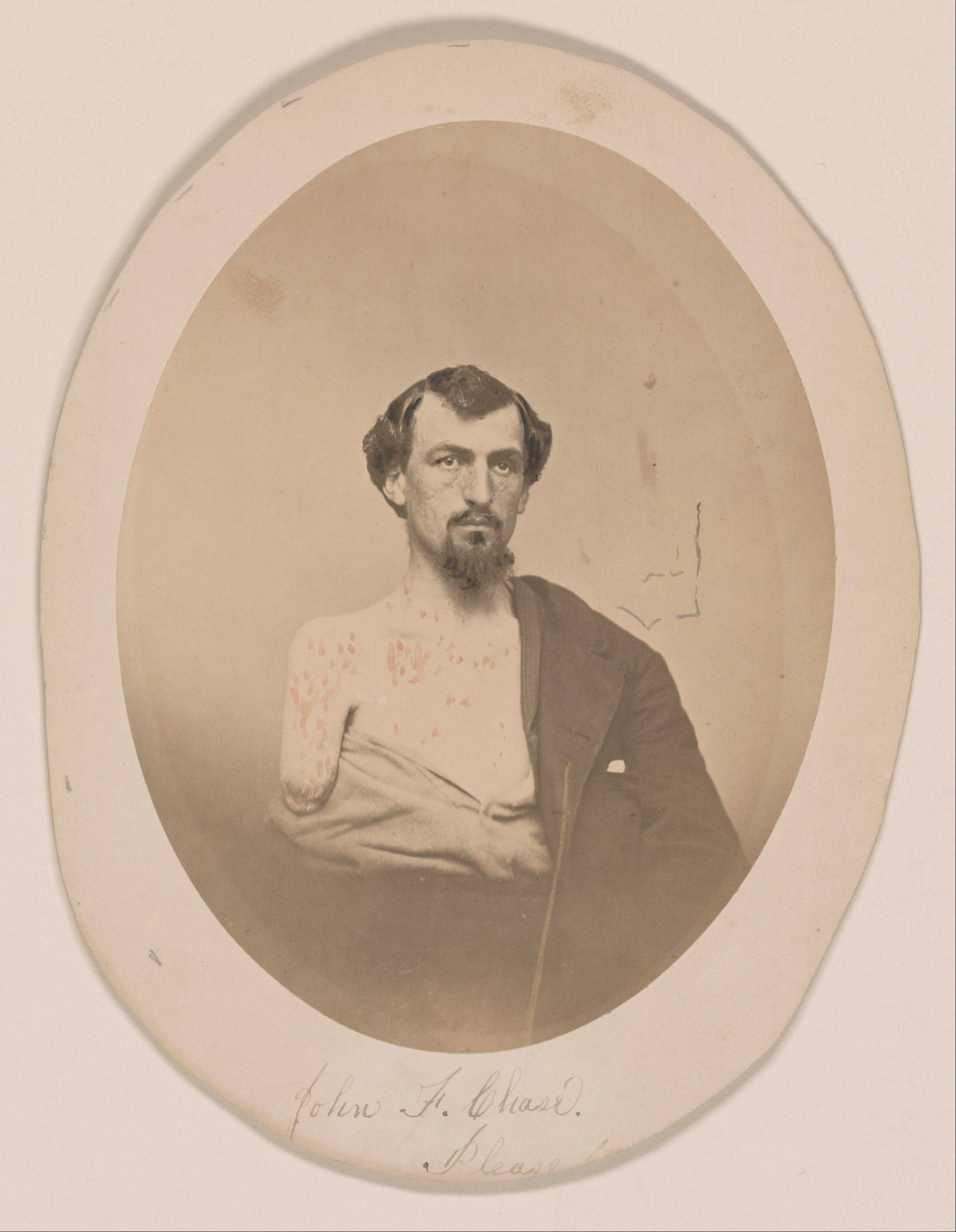 This undated handout image provided by the Library of Congress shows John F. Chase. who lost his right arm and left eye at Gettysburg, which is part of an exhibit at the Library of Congress of letters and diaries saved for 150 years from those who lived through the Civil War.