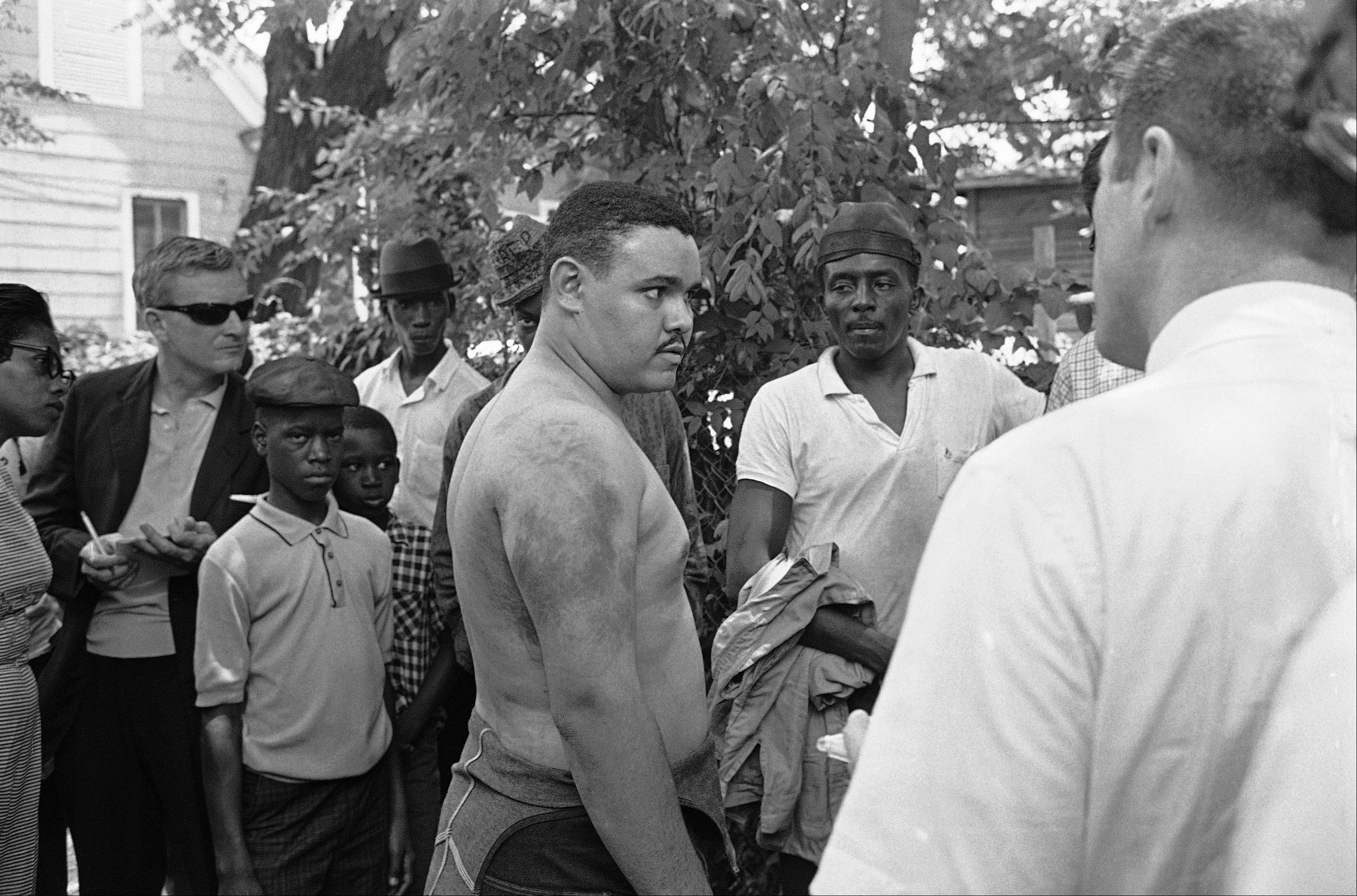 Lawrence Guyot, then 23, removed his shirt in Jackson, Miss., to show newsmen where he said Greenwood and Winona police beat him with leather slapsticks in this June 14, 1963, file photo.