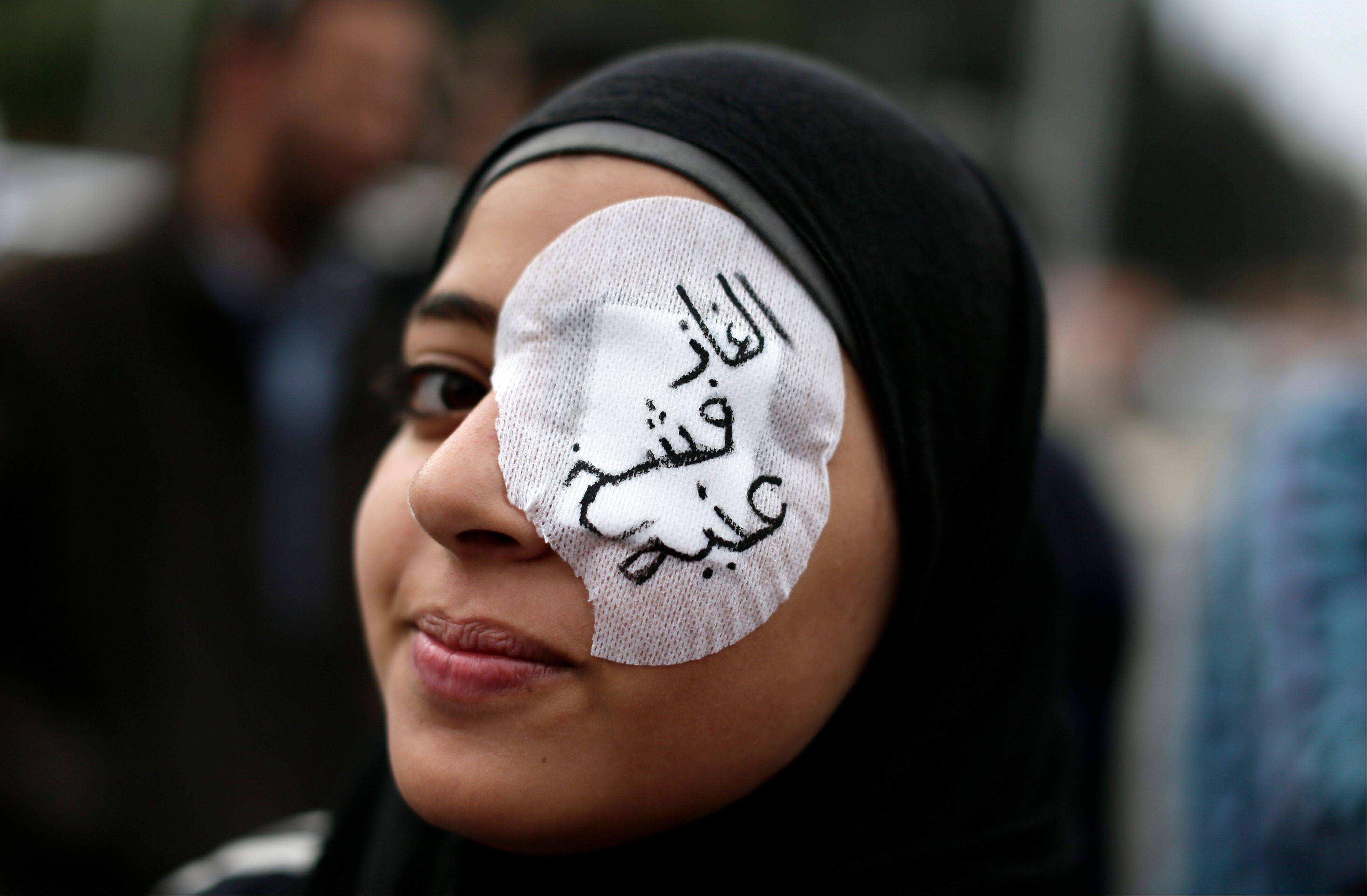 "An Egyptian protester wears an eye patch during an anti-Muslim Brotherhood demonstration outside the presidential palace in Cairo where supporters of Morsi and opponents clashed. Arabic on the eye patch reads, ""tear gas damaged my eye."""