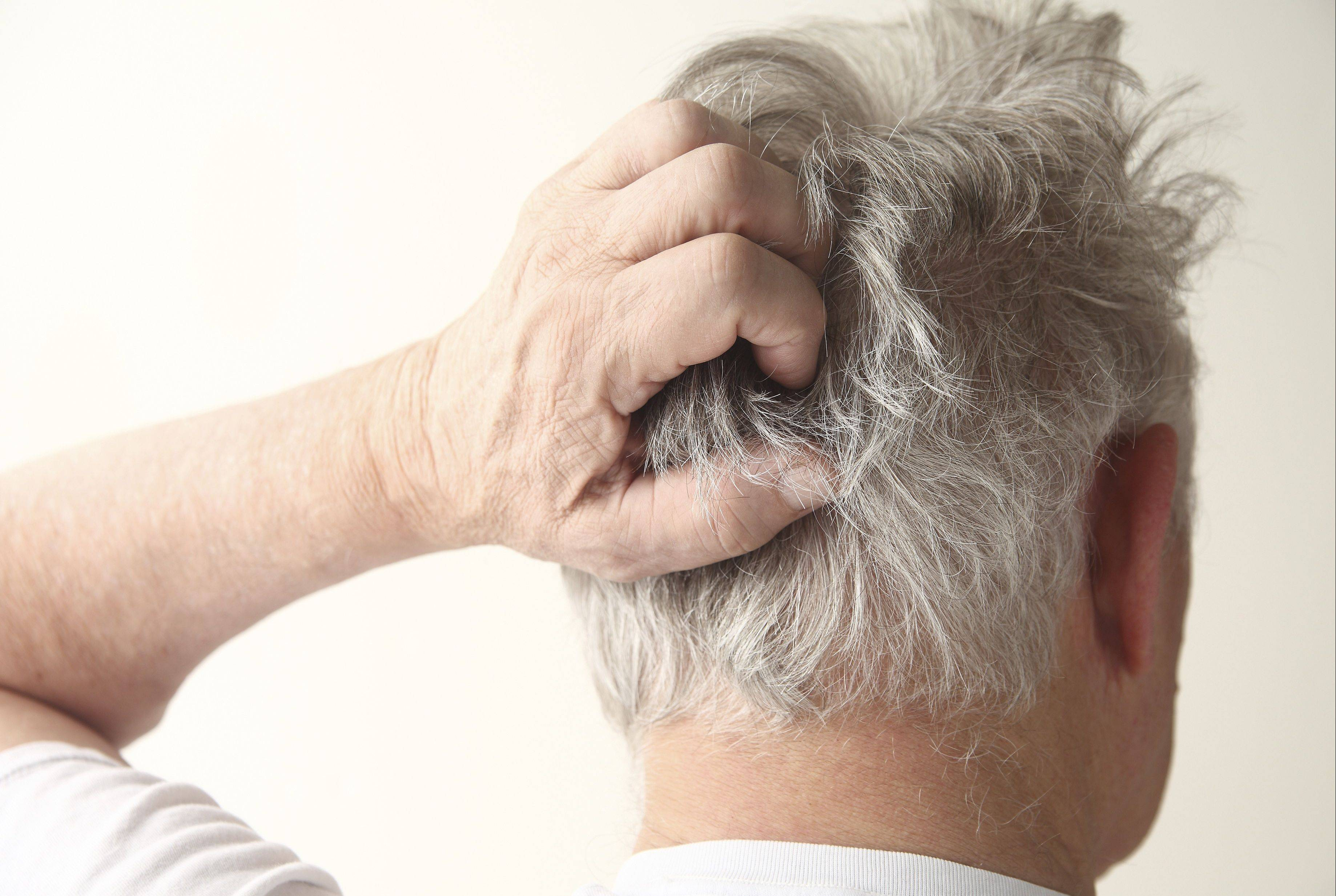 Dandruff and itchy scalp often get worse in winter.