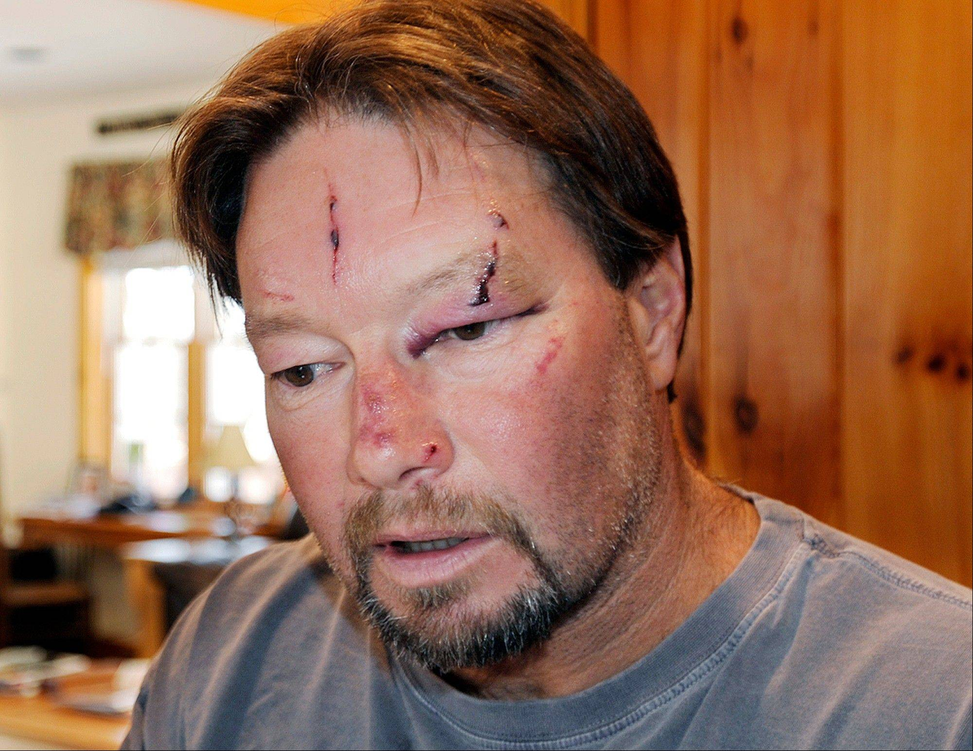 Roger Mundell Jr. bears cuts on his face at his home in Brookfield, Mass., after being attacked by a bobcat in his garage Sunday. The cat ran out of the garage and bit Mundell�s 15-year-old nephew on the arms and back before it was shot and killed.