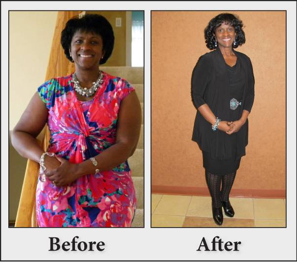 Rosalind McDaniel before and after losing 43 pounds with Vista's non-surgical weight loss program
