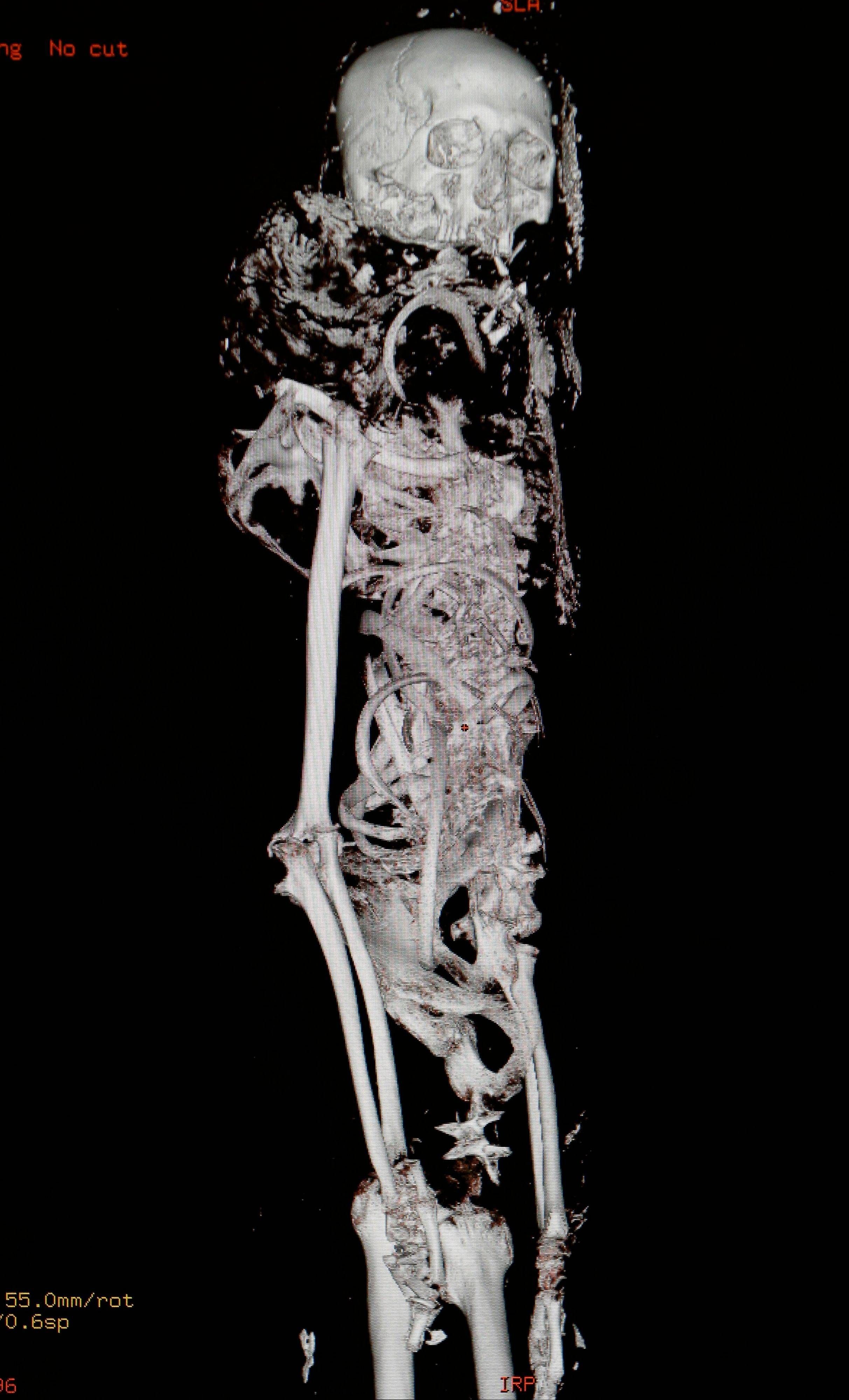 A three-dimensional image of a CT scan from a 4,000-year-old Egyptian mummy called Tjeby, from the Virginia Museum of Fine Arts, is shown Friday at the HCA Virginia Imaging center in Richmond, Va.