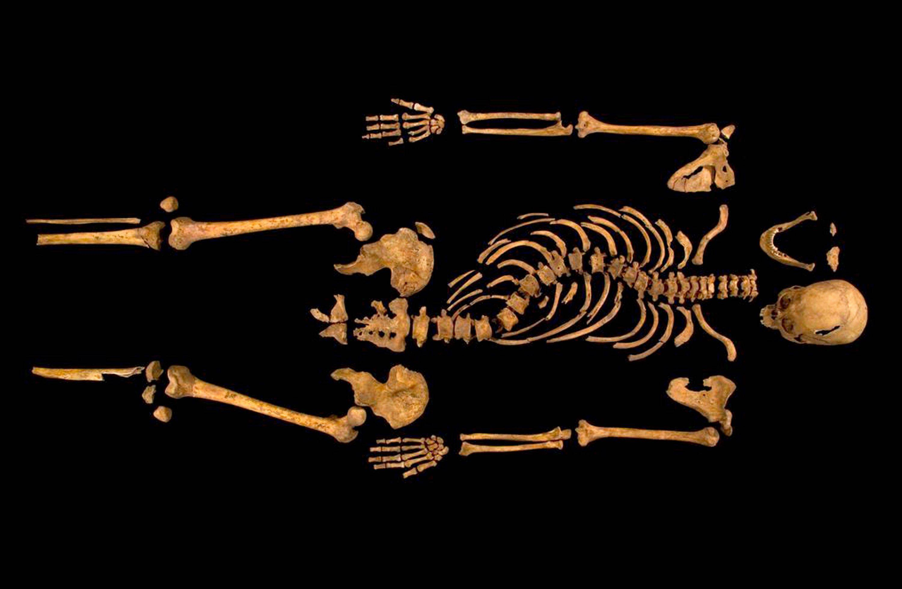 "This photo made available by the University of Leicester, England, Monday shows the remains found underneath a parking lot in Leicester, which have been declared ""beyond reasonable doubt"" to be the long lost remains of England's King Richard III, missing for 500 years."