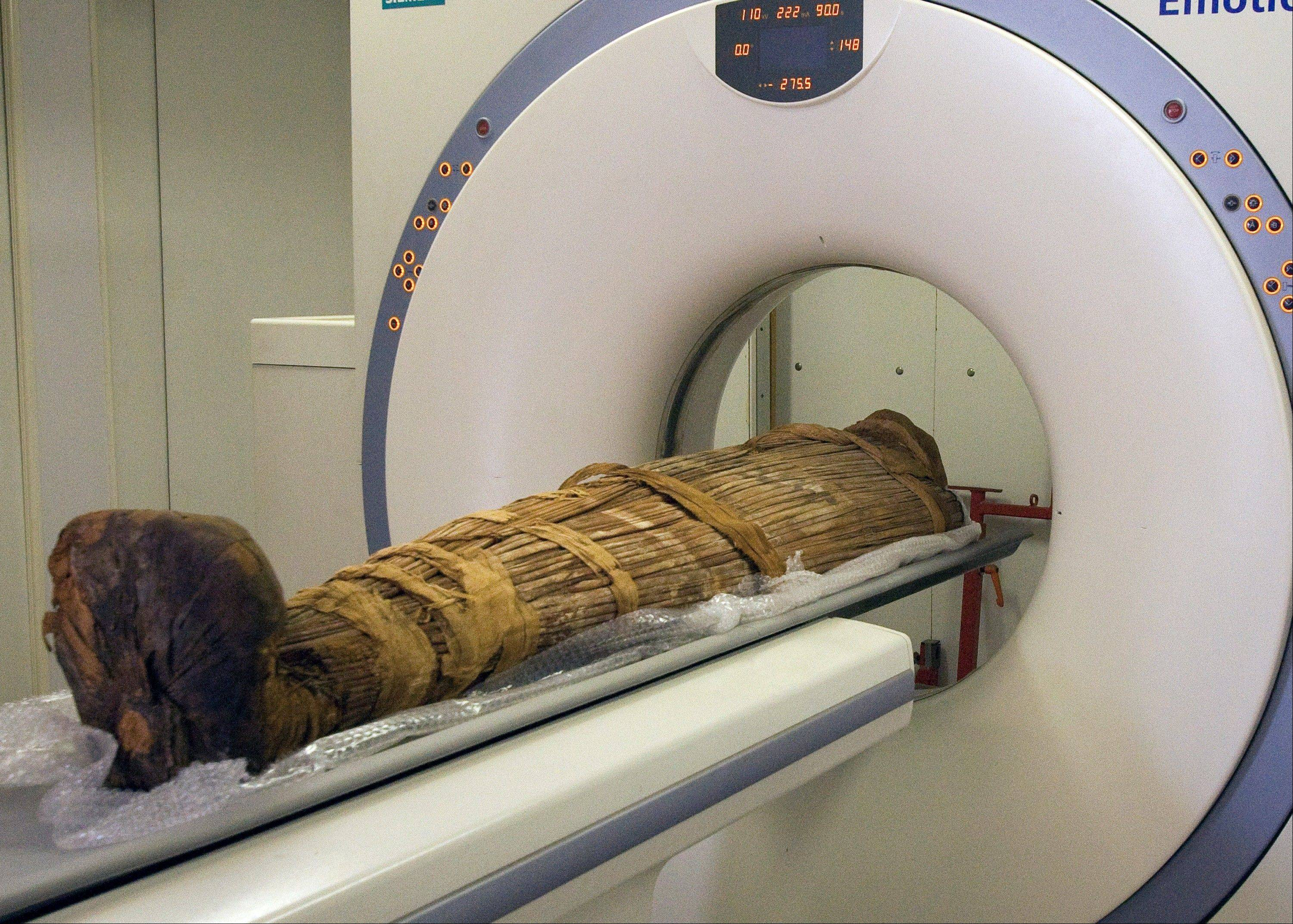 The mummy Hatiay (New Kingdom, 18th Dynasty, 1550 to 1295 BCE) being scanned in CAiro, Egypt, where it was found to have evidence of extensive vascular disease by CT scanning. This scanning is part of a major survey to investigate some 137 mummies which has revealed that people probably had clogged arteries and heart disease some 4,000 years ago.