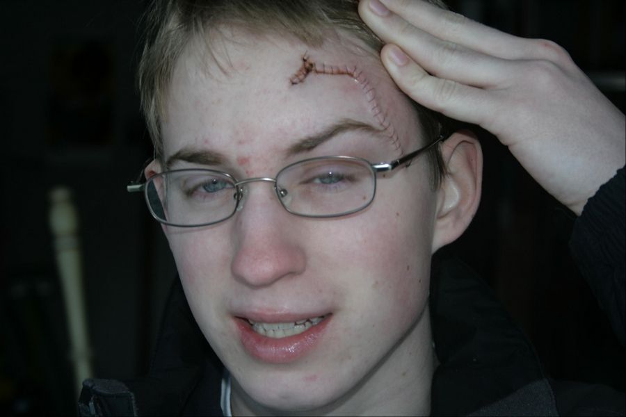 Matt Schuelke, then a Fremd High School junior, shows where a rock crushed his skull while skiing in February 2008.