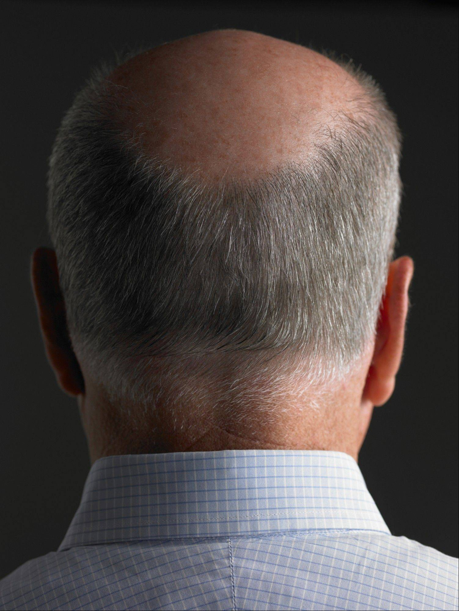 Men who lose hair at the crown of the head may have a higher risk of heart disease.