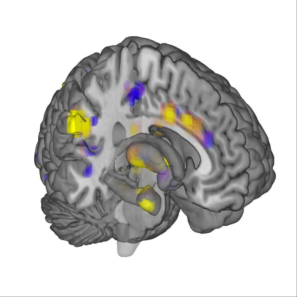 "This image displays regions of the ""neurologic pain signature,"" a standard map that can be applied to individual people who may be experiencing pain. In a new study, scientists reported that they were able to ""see"" pain on brain scans and, for the first time, measure its intensity and tell whether a drug was relieving it."