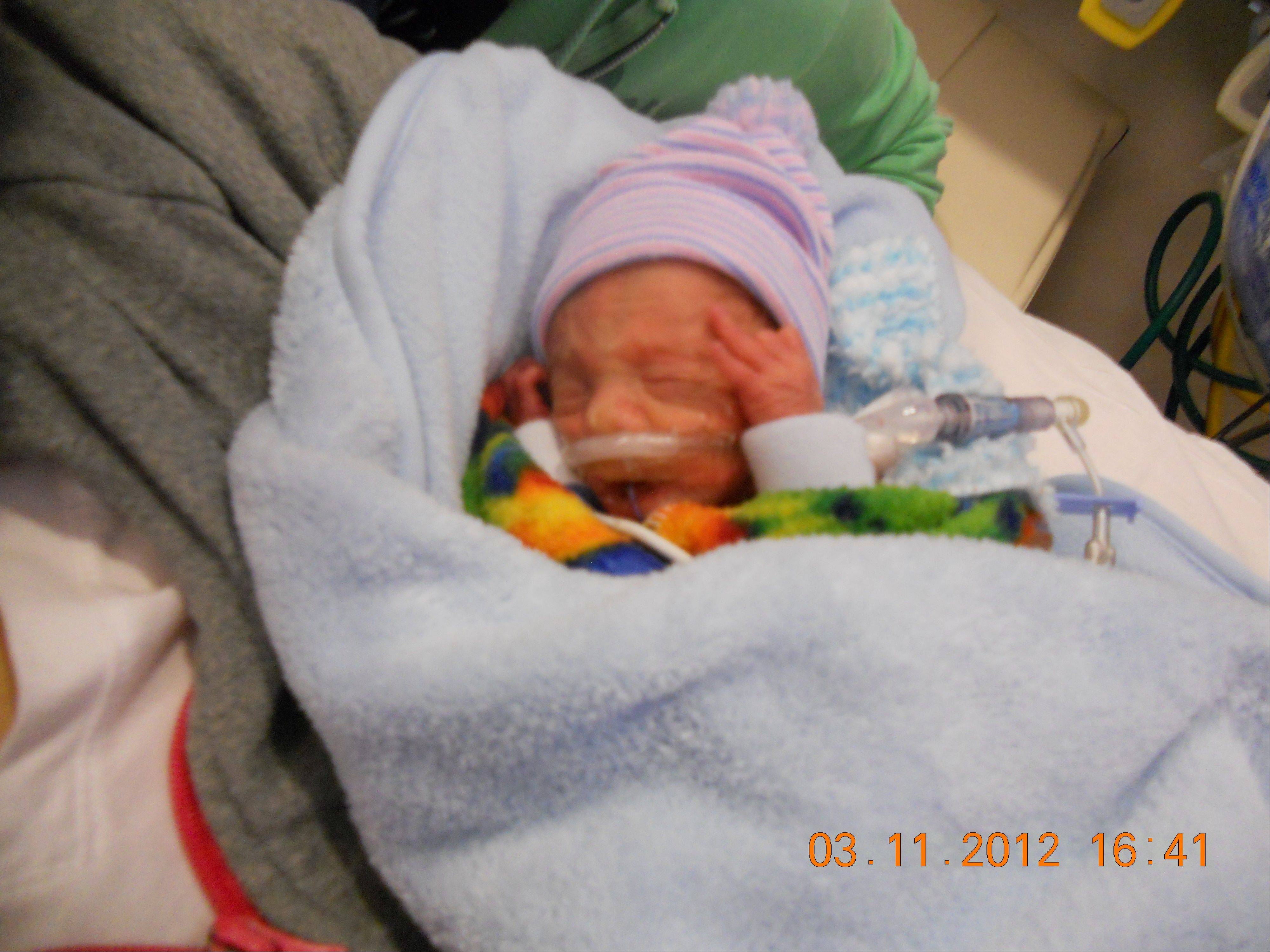 Henry Greske was just more than 2 pounds and 13 inches when he was born just shy of 27 weeks gestation.