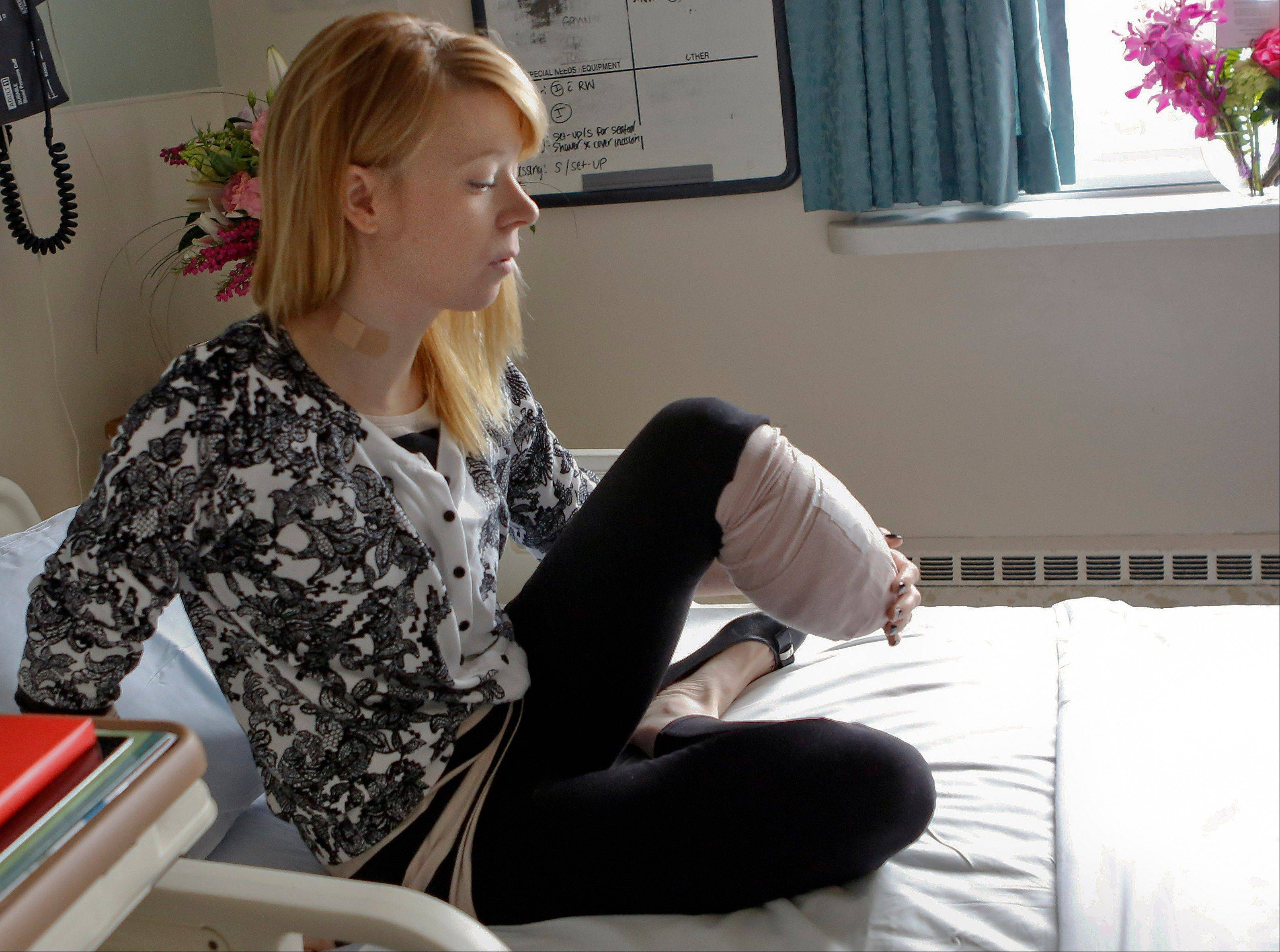 Adrianne Haslet, a professional ballroom dancer injured by one of the bombs that exploded near the Boston Marathon finish line, lifts her bandaged left leg in her bed at Spaulding Rehabilitation Hospital in Boston, Wednesday, April 24, 2013. Haslet, who lost her left foot and part of her lower leg, vows that she will dance again.