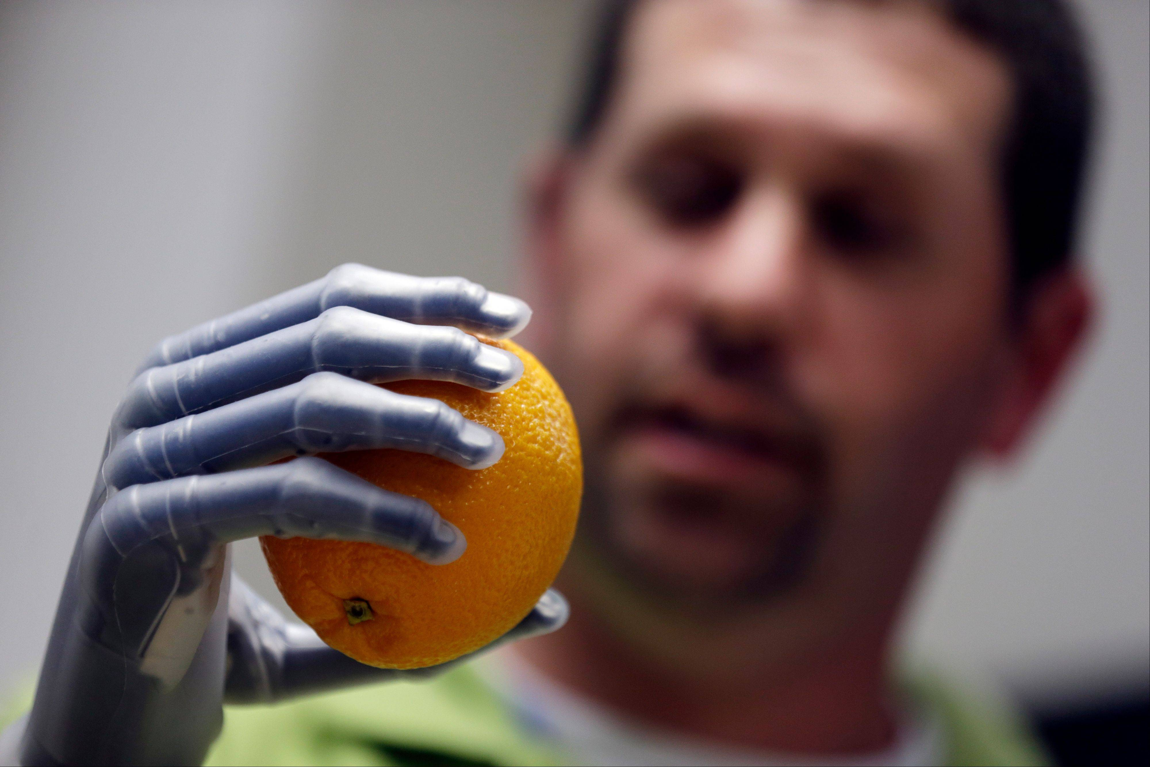 Double amputee Jason Koger, 34, of Owensboro, Ky., demonstrates his i-limb ultra revolution hands on Thursday.