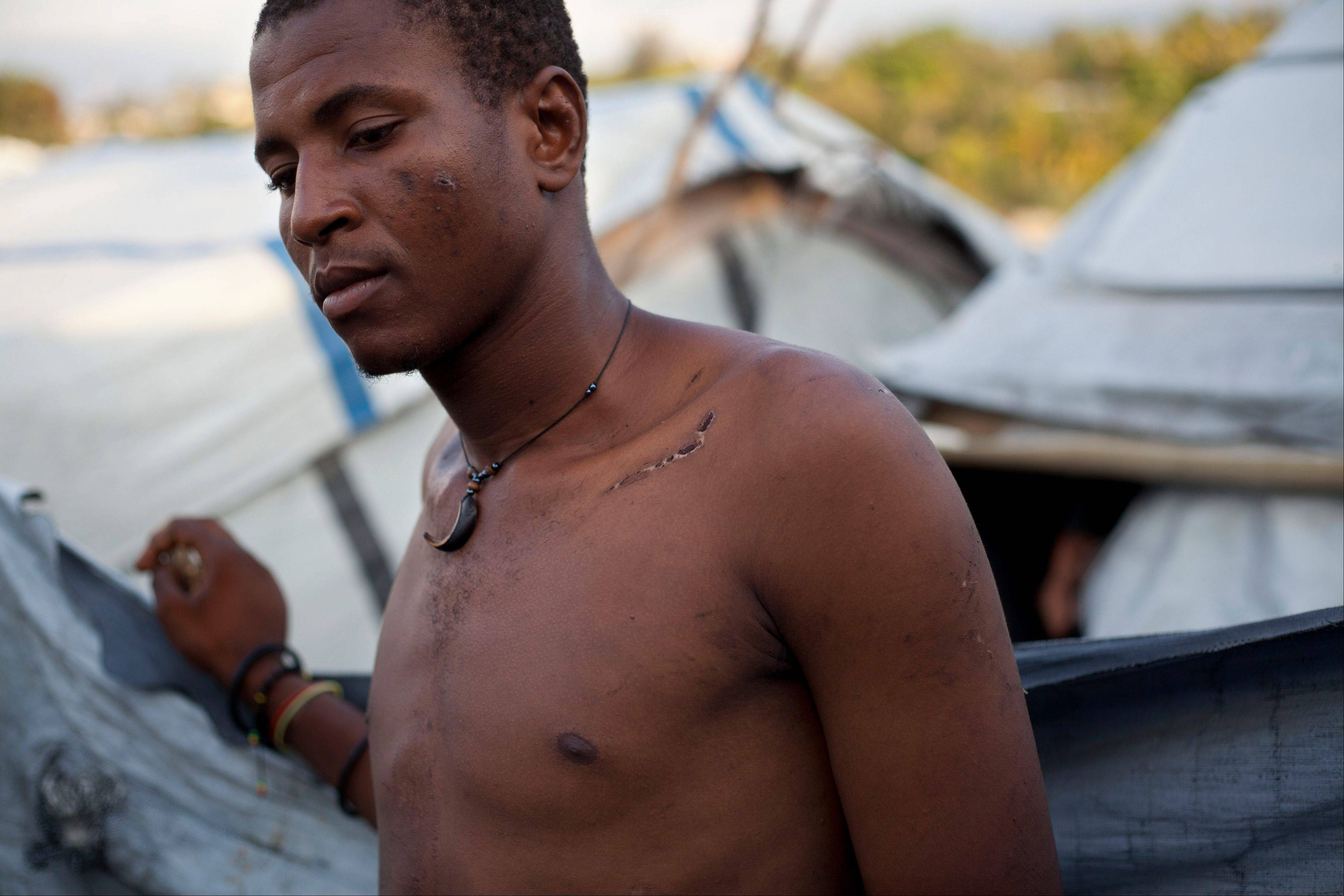 Darlin Lexima shows a scar covering his collar bone which he says was inflicted by a police beating as he stands outside his home at Camp Acra in the Delmas district of Port-au-Prince, Haiti. Lexima, 21, was arrested by police early April 15 when he was walking home from a disco club, as residents at his camp were protesting a raid by motorcyclists who set fire to their homes.