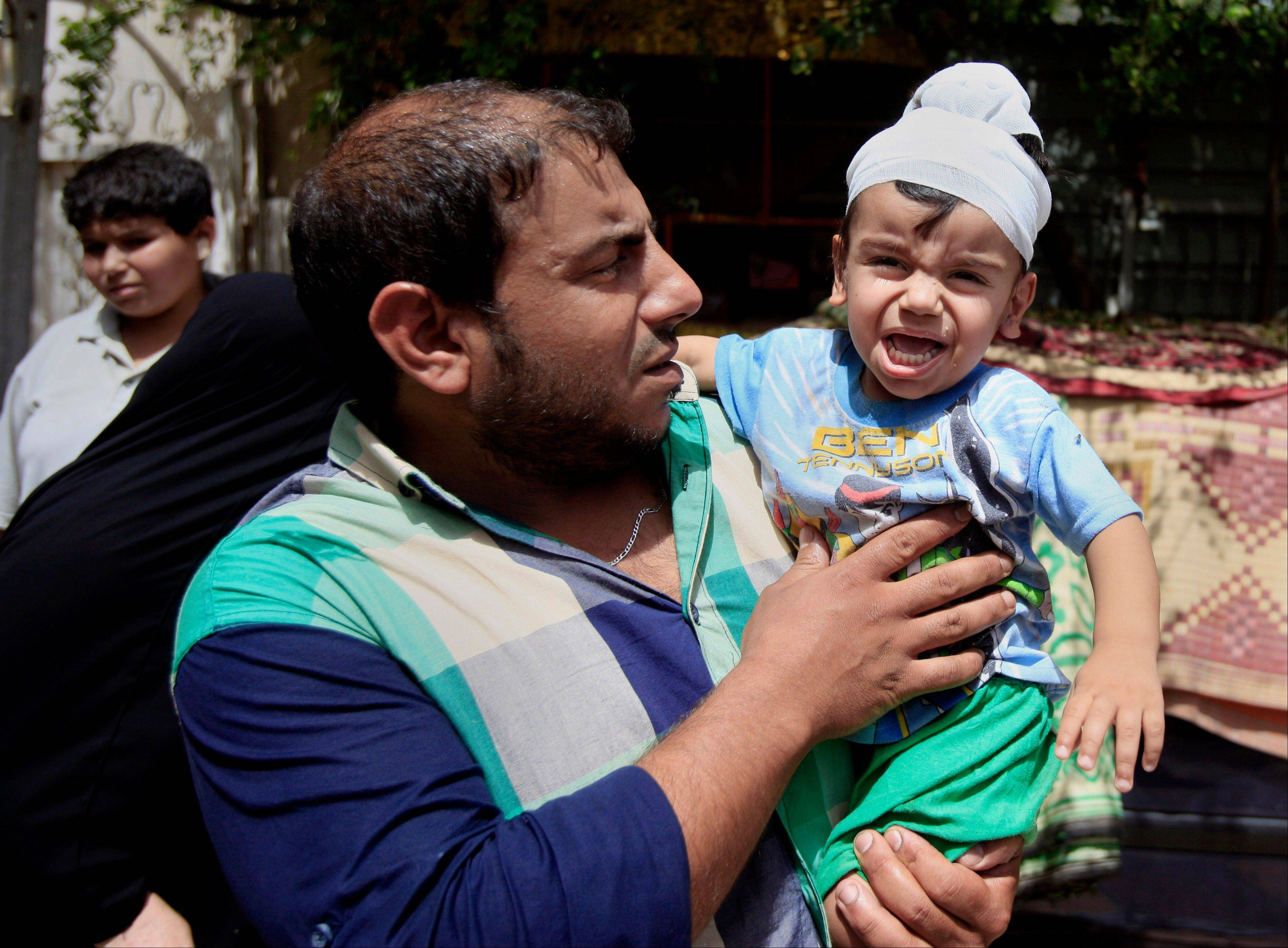 Ali Arar holds his one-year-old wounded son, Aqeel Ali, at the scene of a car-bomb attack in the Sadr City neighborhood in Baghdad, Iraq, Thursday, May 16, 2013. A car bomb explosion in a sprawling Shiite neighborhood of Baghdad has killed and wounded dozens of people, officials said.