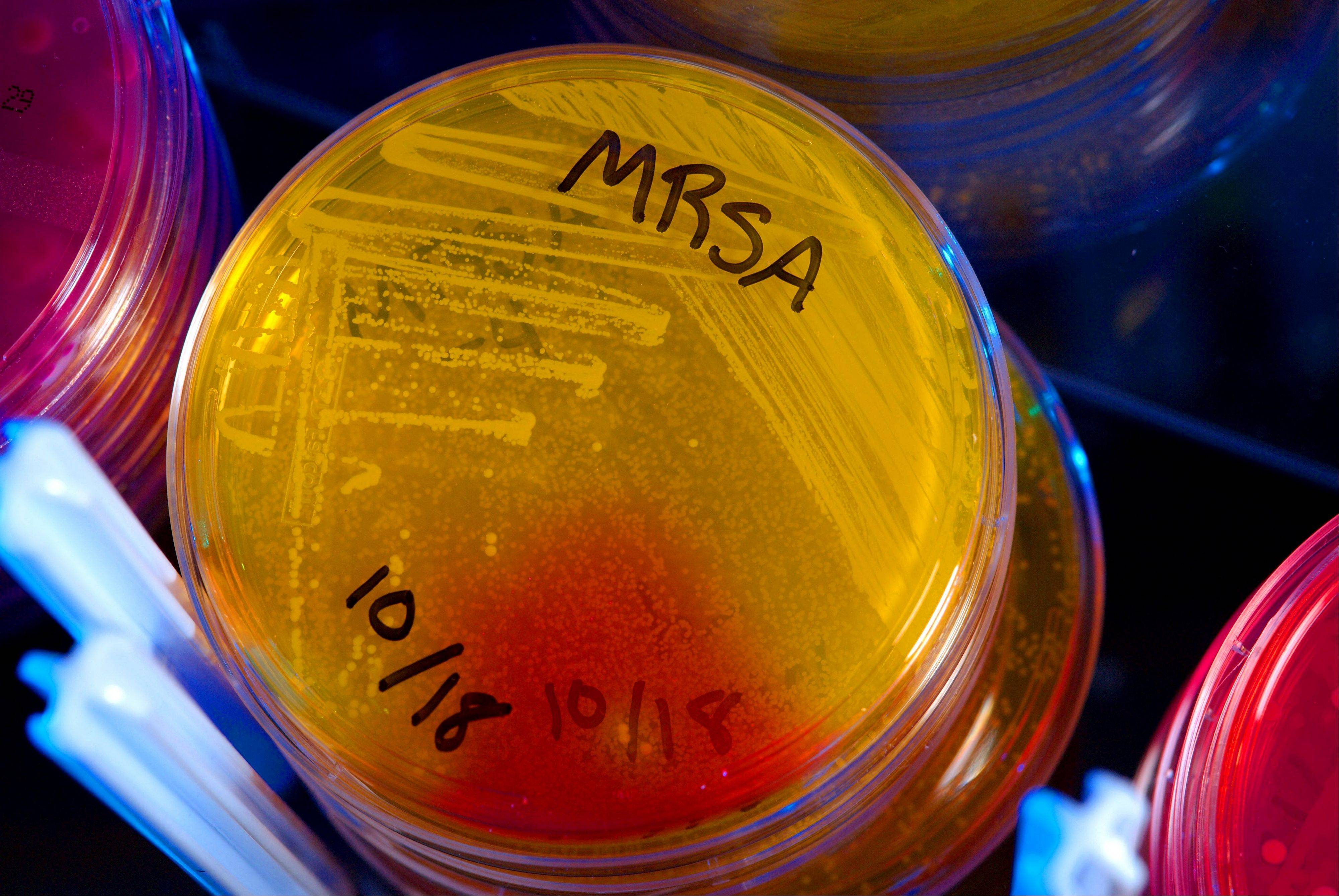 Plates of Methicillin-Resistant Staphylococcus Aureus (MRSA) in CDC's healthcare-associated infections laboratory.