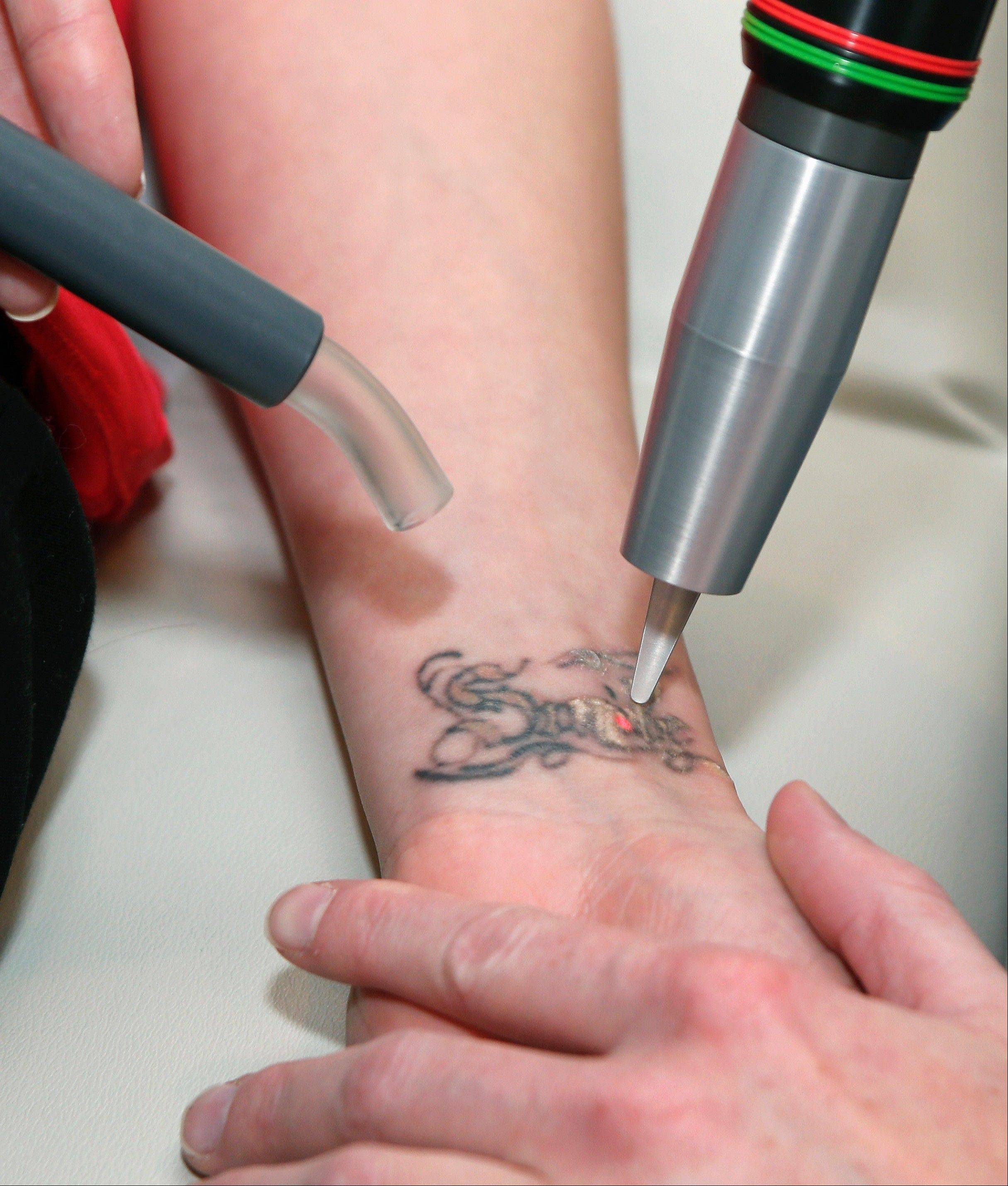 Physician's assistant Brittany Zimmerman uses a laser to remove a tattoo on Chelsea Robertson's wrist.