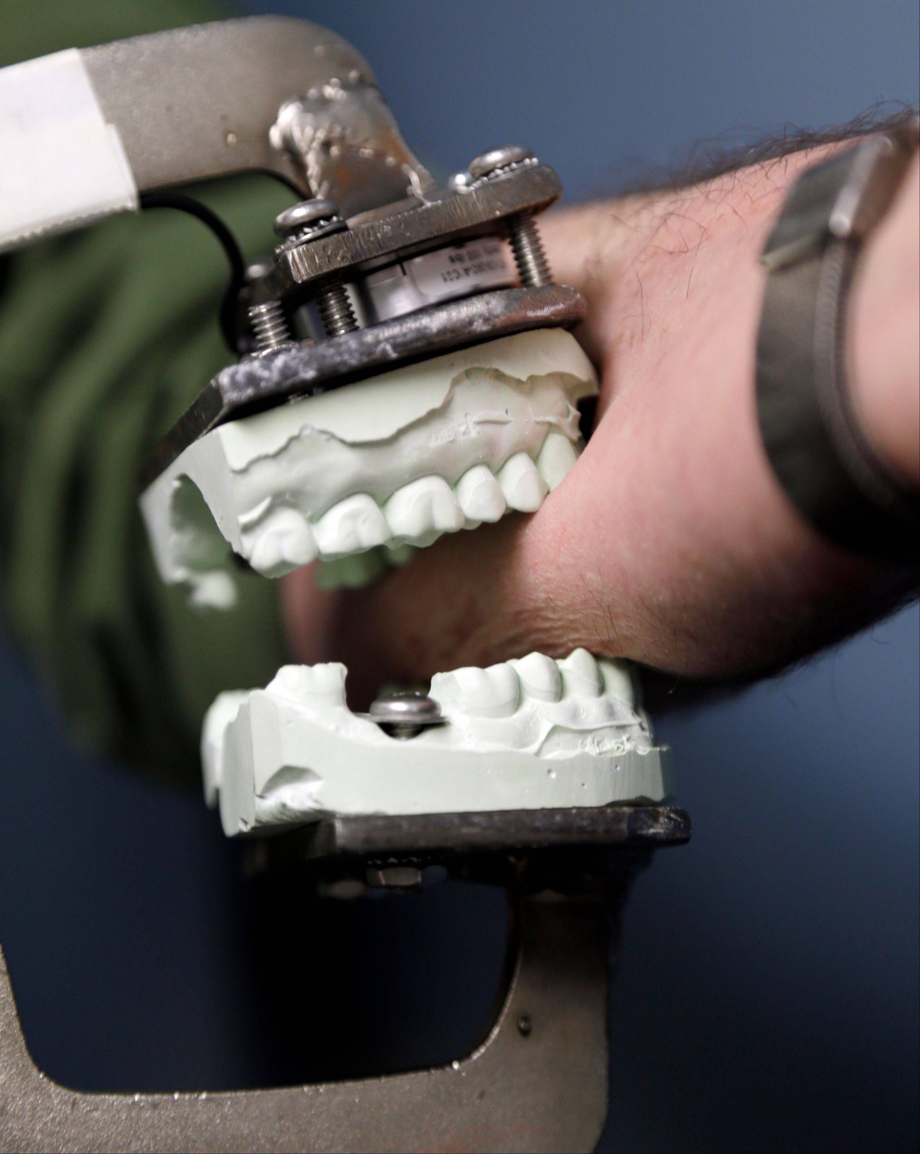 Peter Bush, a research scientist at the University at Buffalo, demonstrates a modified Vise-Grip tool attached to a dental mold that is used for test bites in skin. Bite marks, long accepted as criminal evidence, now face doubts about reliability.