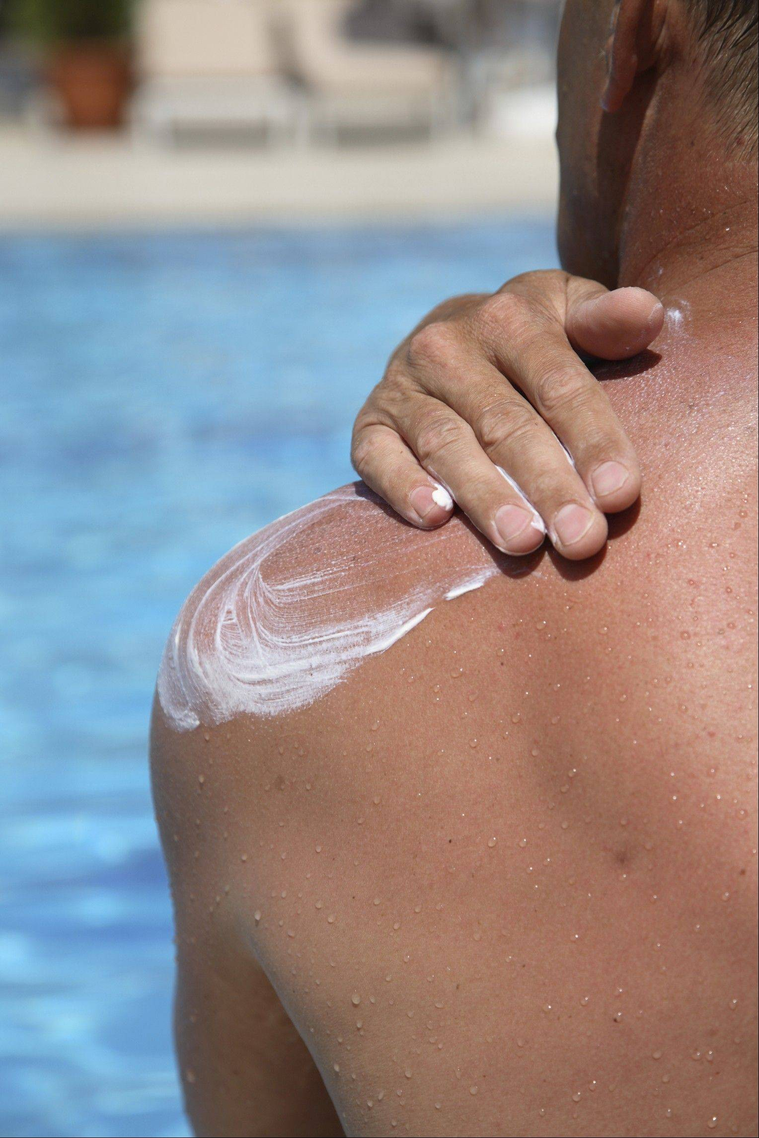 Use sunscreen when outdoors.