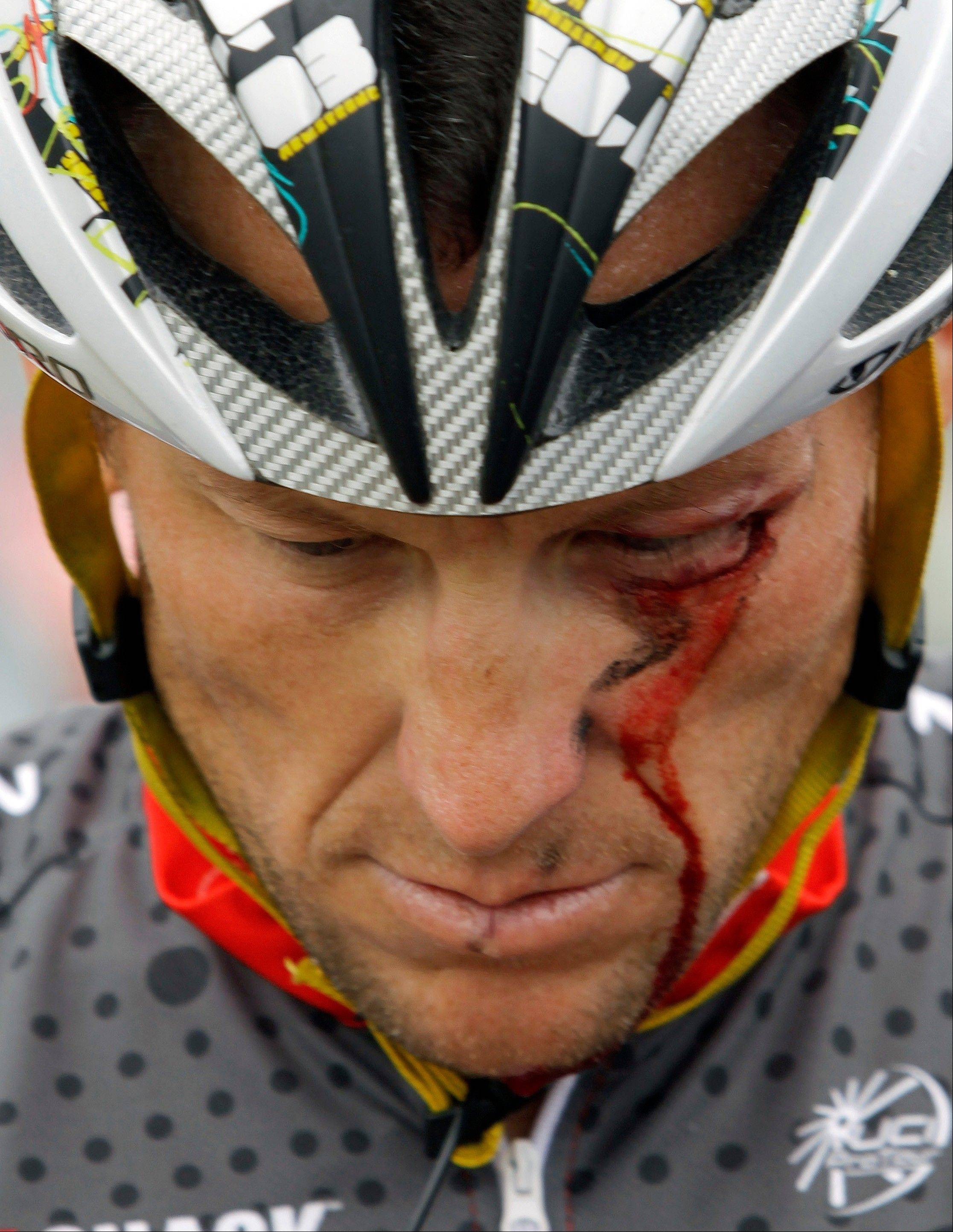Associated Press The dirty past of the Tour de France came back on Friday, June 28, 2013, to haunt the 100th edition of cycling�s showcase race, with Lance Armstrong telling a newspaper he couldn�t have won without doping.