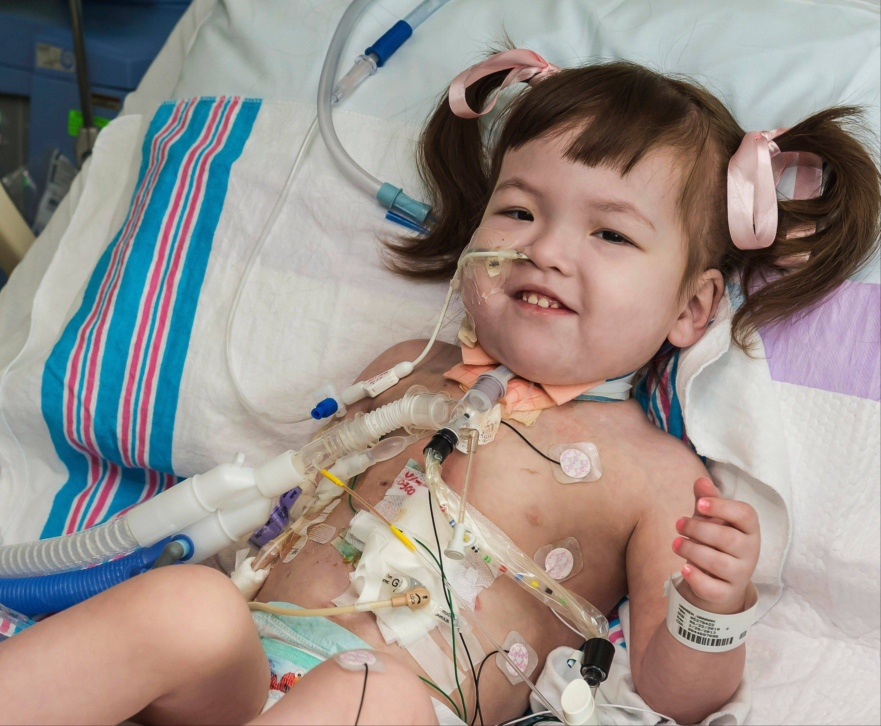 Hannah Warren, 2, lies in bed in a post-op room at the Children�s Hospital of Illinois in Peoria about two weeks after having received a new windpipe in a landmark transplant operation on April 9, 2013.