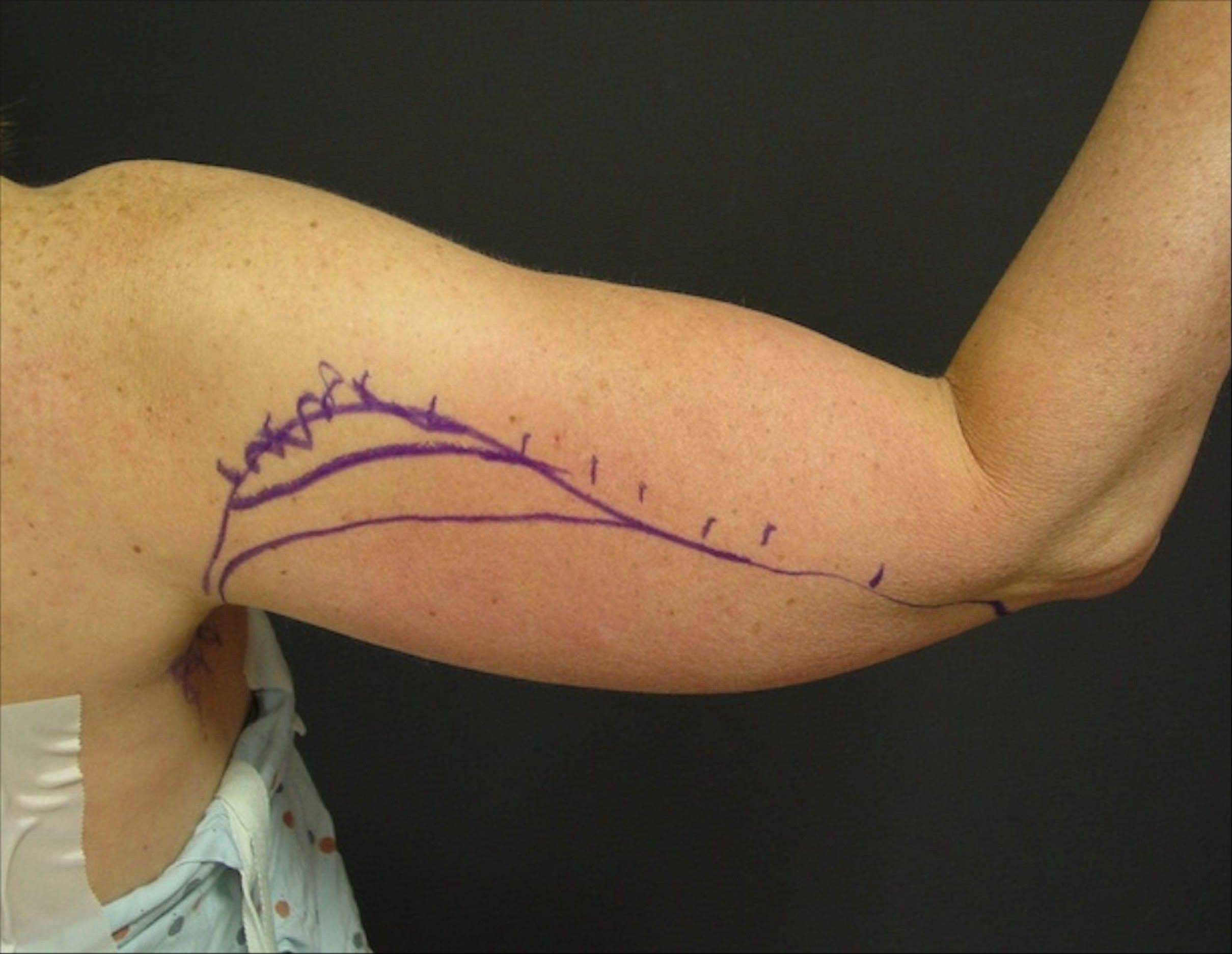 Dr. Suzan Obagi's patient before upper-arm-lift surgery, also known as brachioplasty.