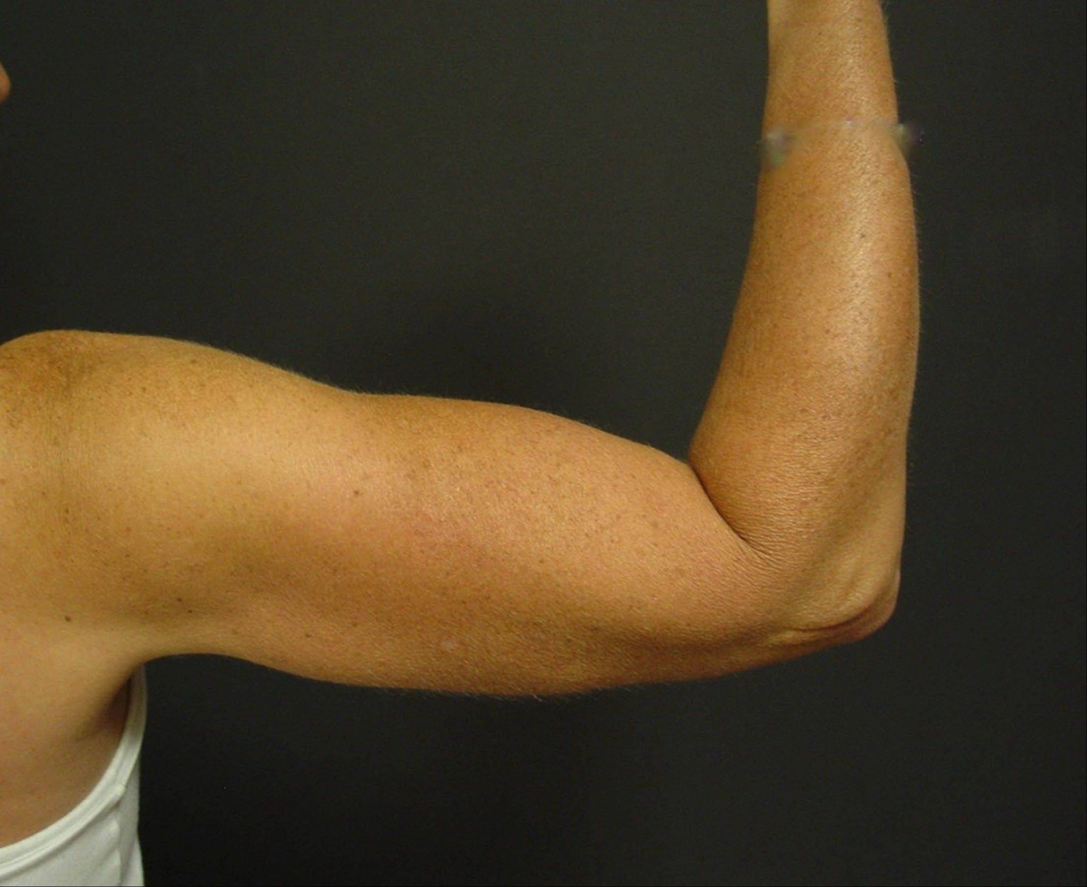 Dr. Suzan Obagi's patient after upper-arm-lift surgery, also known as brachioplasty.