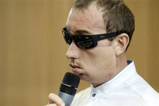 "Poland's first face transplant patient, identified only by his first name Grzegorz, speaks at a press conference after he was discharged from the hospital, in Gliwice, Poland, Tuesday, July 30, 2013. The 33-year-old man said he owes his doctor ""everything"" following a skin-and-bone transplant on May 15, three weeks after losing his nose, upper jaw and cheeks in an accident at the brick factory where he worked."