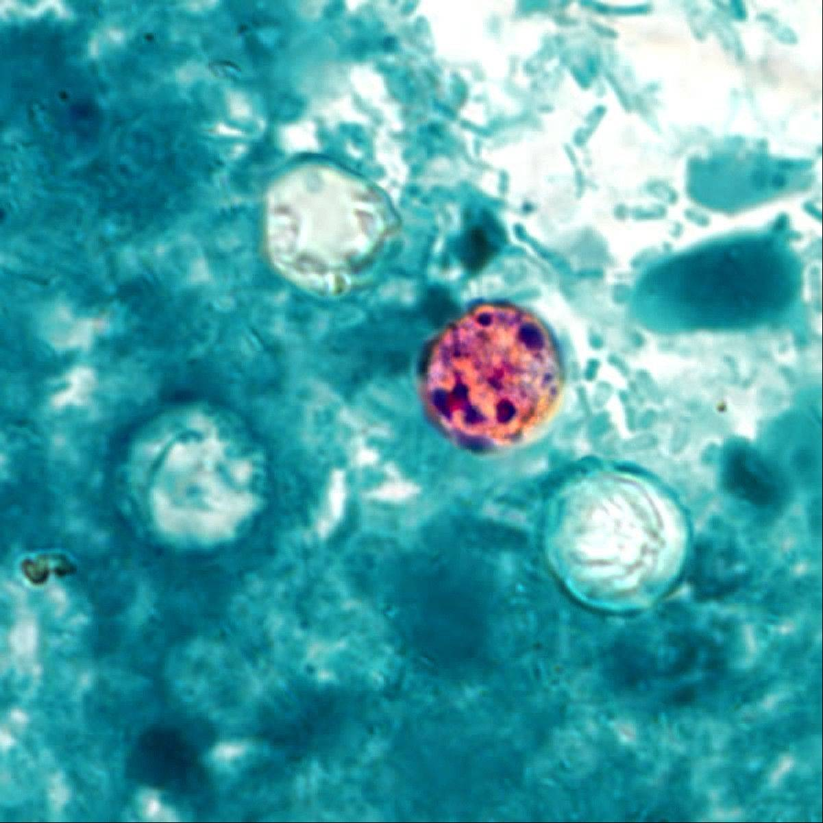 In this image provided by the Centers for Disease Control and Prevention, a photomicrograph of a fresh stool sample, which had been prepared using a 10% formalin solution, and stained with modified acid-fast stain, reveals the presence of four Cyclospora cayetanensis oocysts in the field of view.
